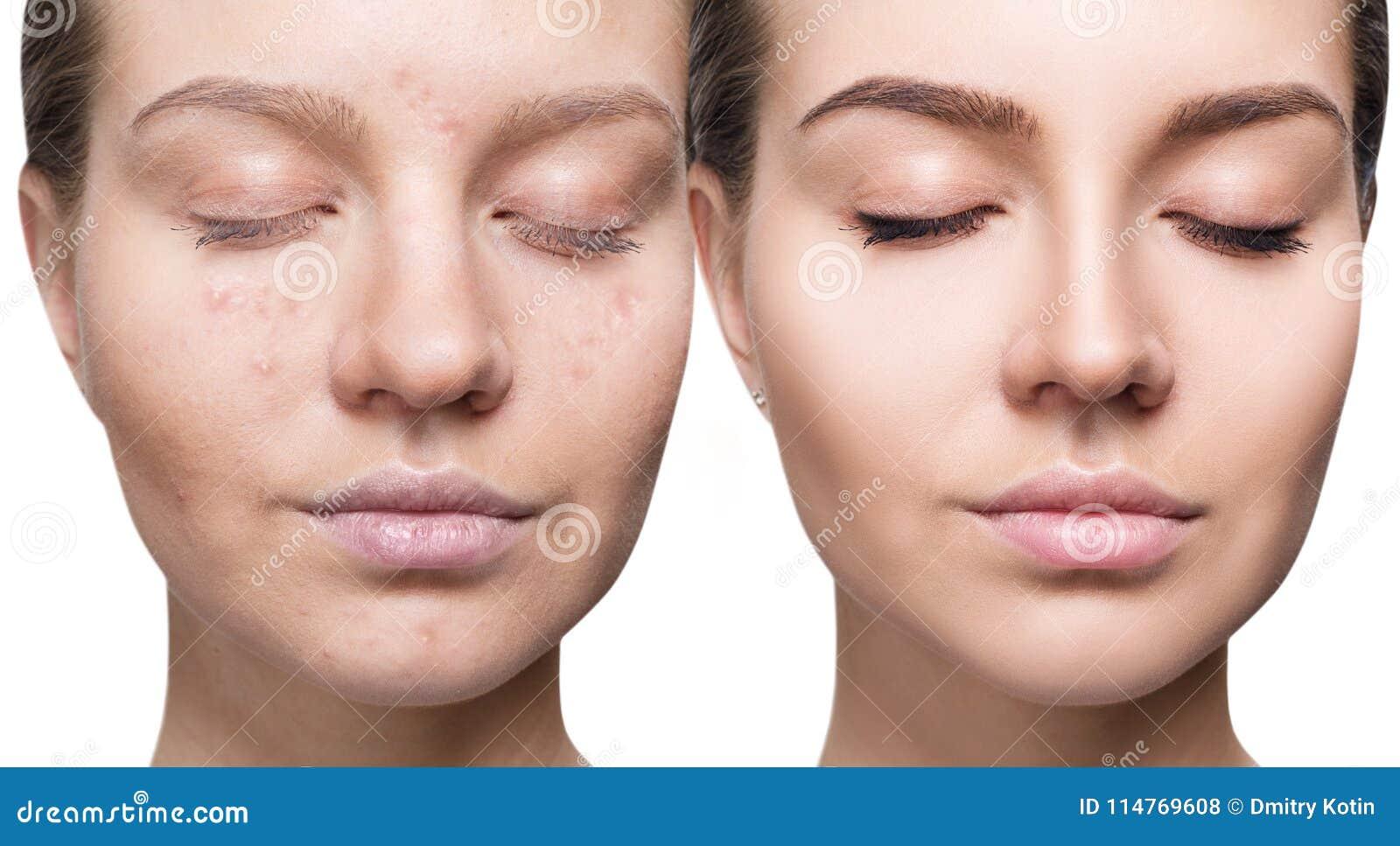 Kvinna med behandling och smink för akne före och efter