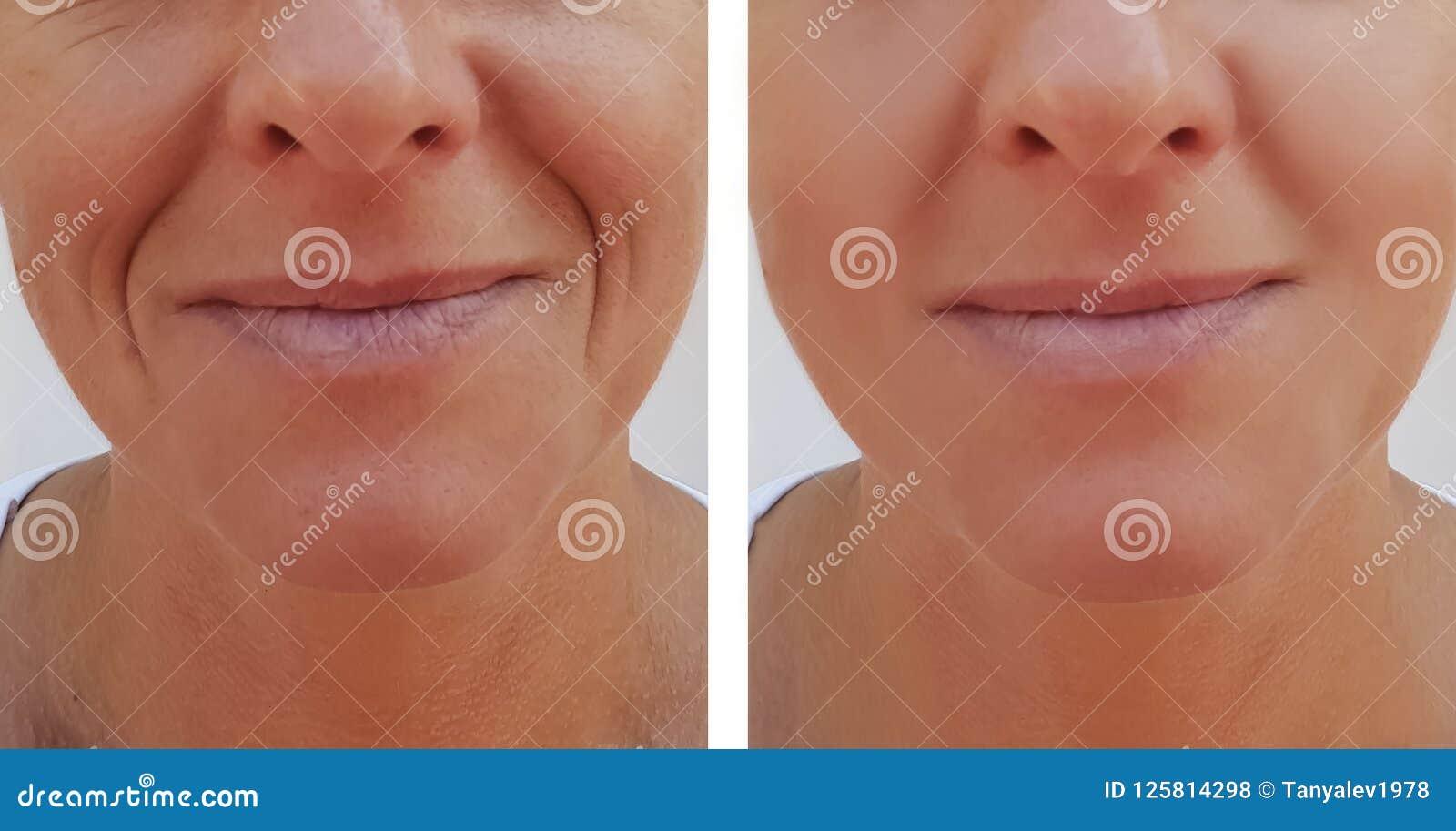 Kvinnan rynkar på tillvägagångssätt för hälsa för framsidadermatologi före och efter anti--åldras