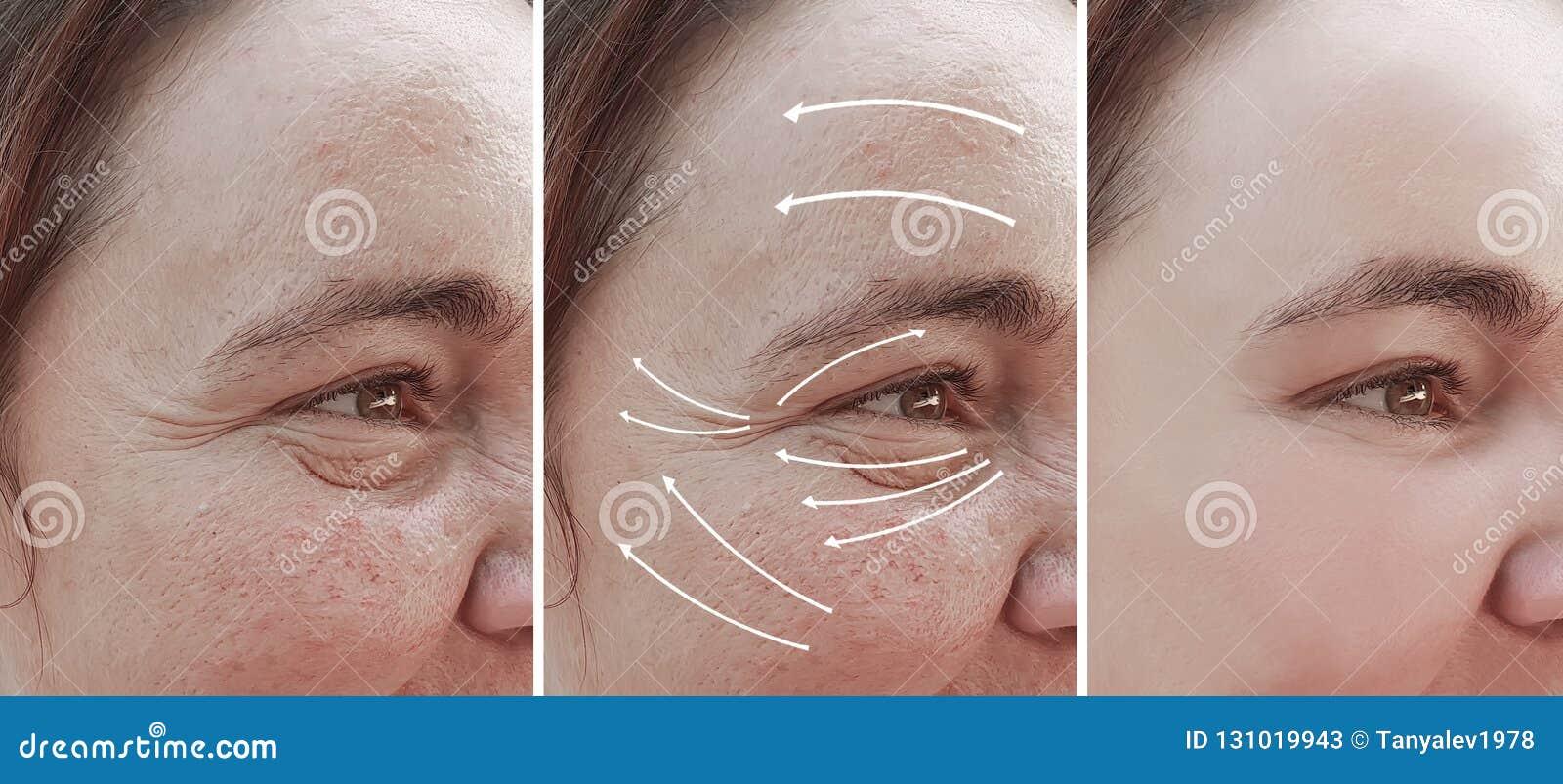 Kvinnaskrynklor vänder mot rosacea verkställer före och efter korrigeringen för skillnadcosmetologyterapi, pil