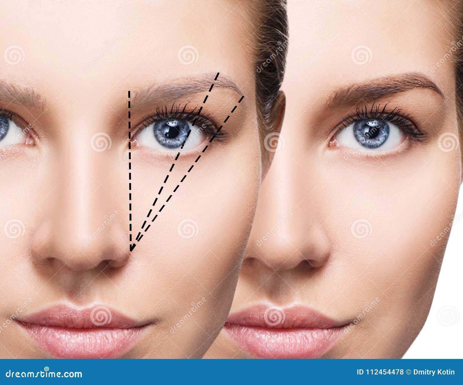 Kvinnlig ögonbrynkorrigering för framsida före och efter