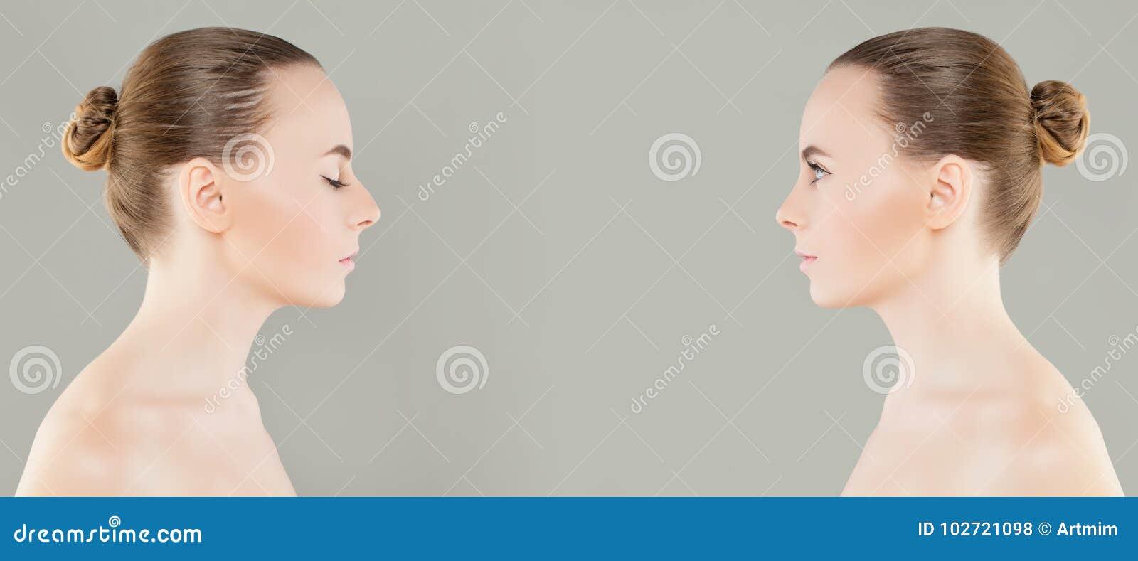 Kvinnlig kosmetisk kirurgi för näsan före och efter eller retuscherar