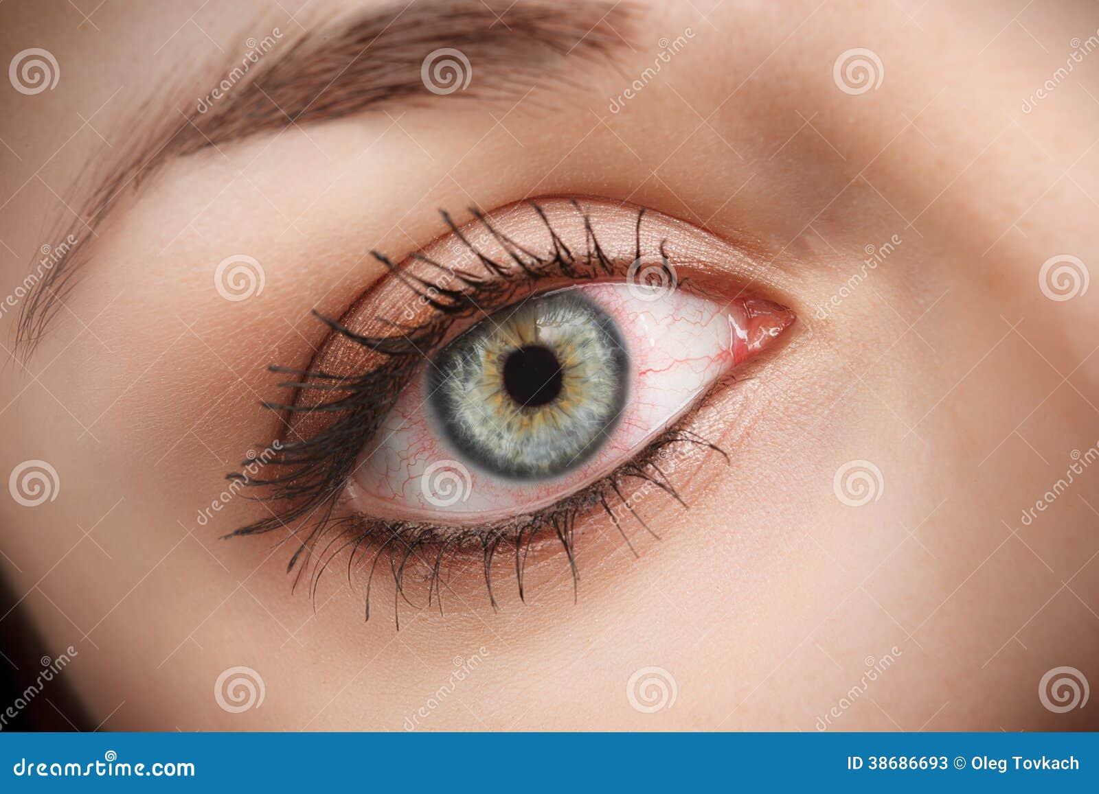 blodkärl som brister i ögat