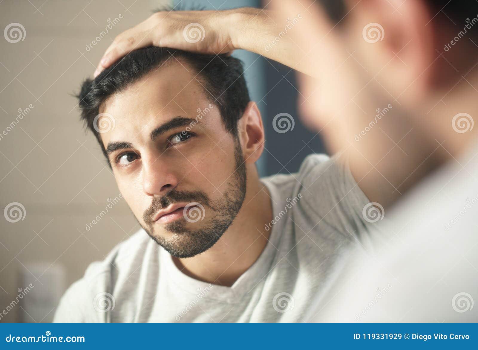 L homme s est inquiété pour l alopécie examinant des cheveux pour assurer la perte