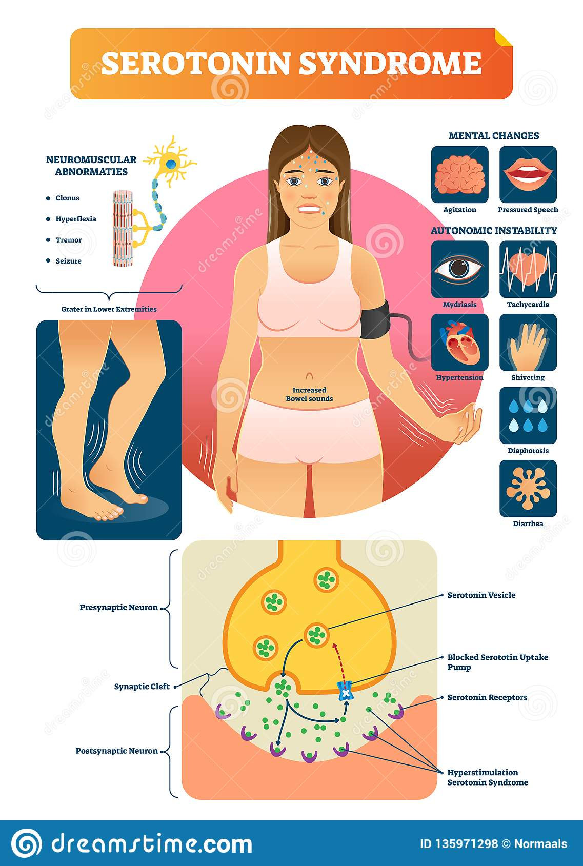 L illustration de vecteur de syndrome de sérotonine avec des symptômes marqués médicaux complotent