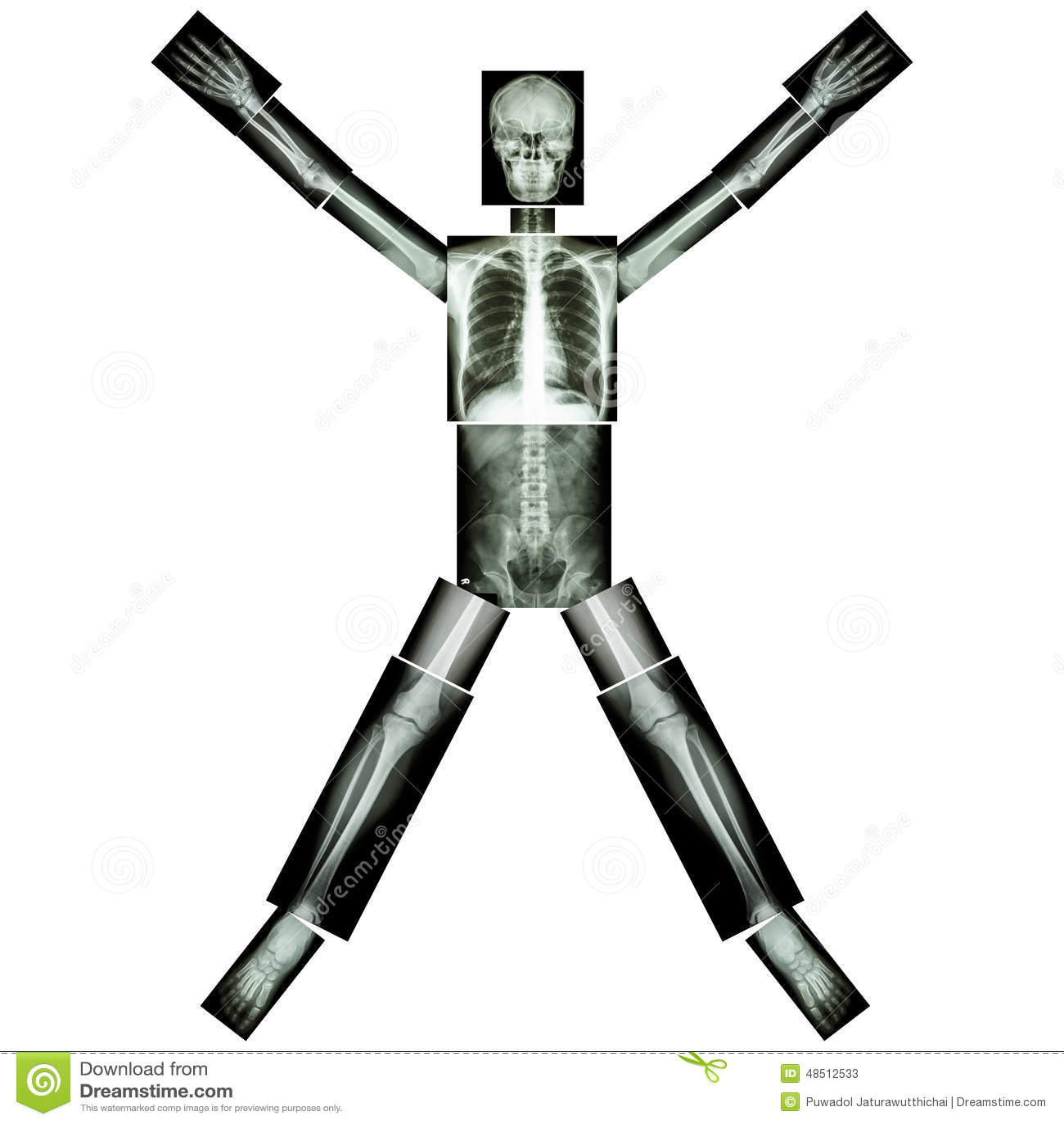 Os du corps humain carabiens le forum for Interieur du corps humain image