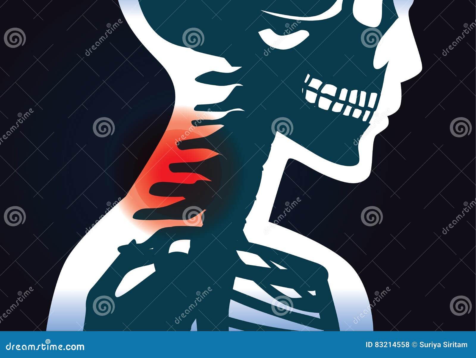 L osso di collo ha sintomo di dolore
