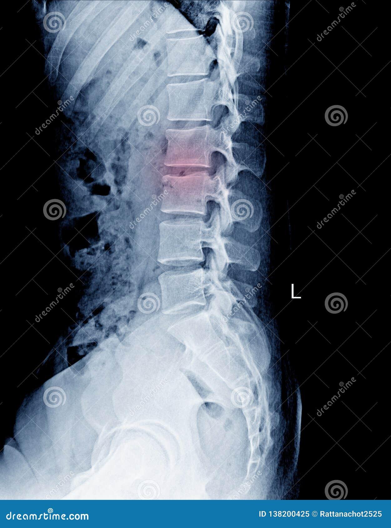 L-S SpineLumbo荐骨的AP