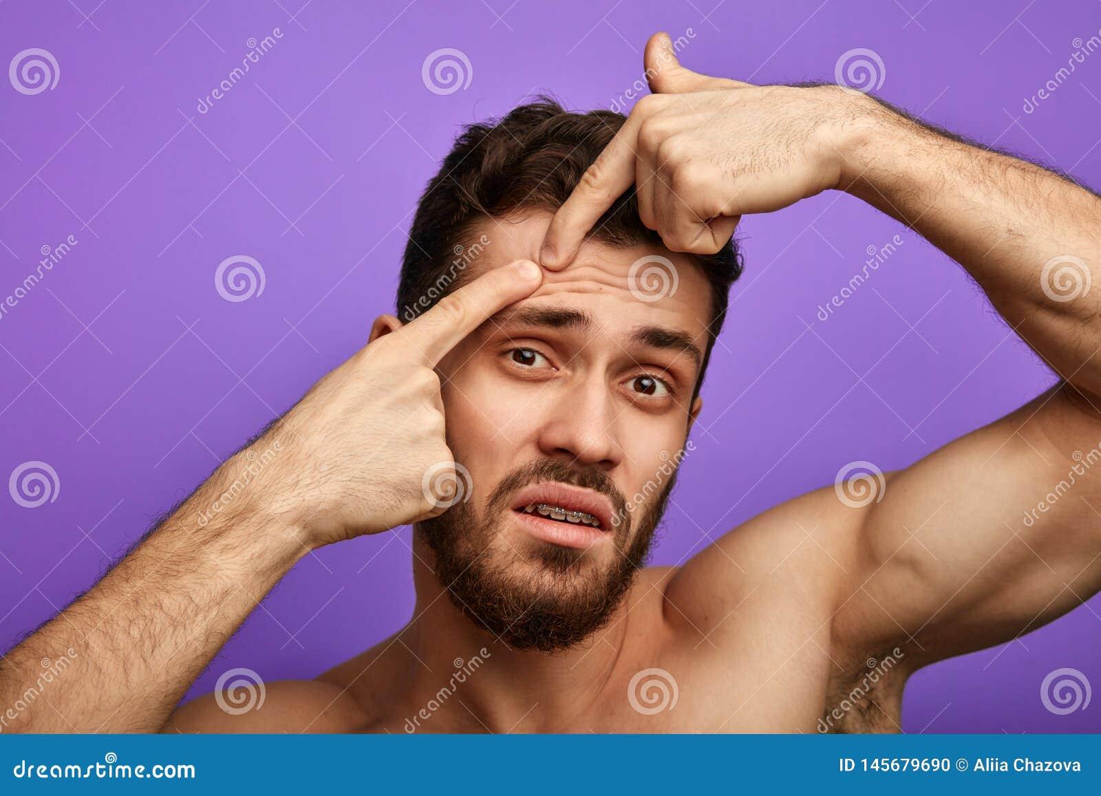 L uomo infelice triste ha trovato un brufolo sul suo fronte