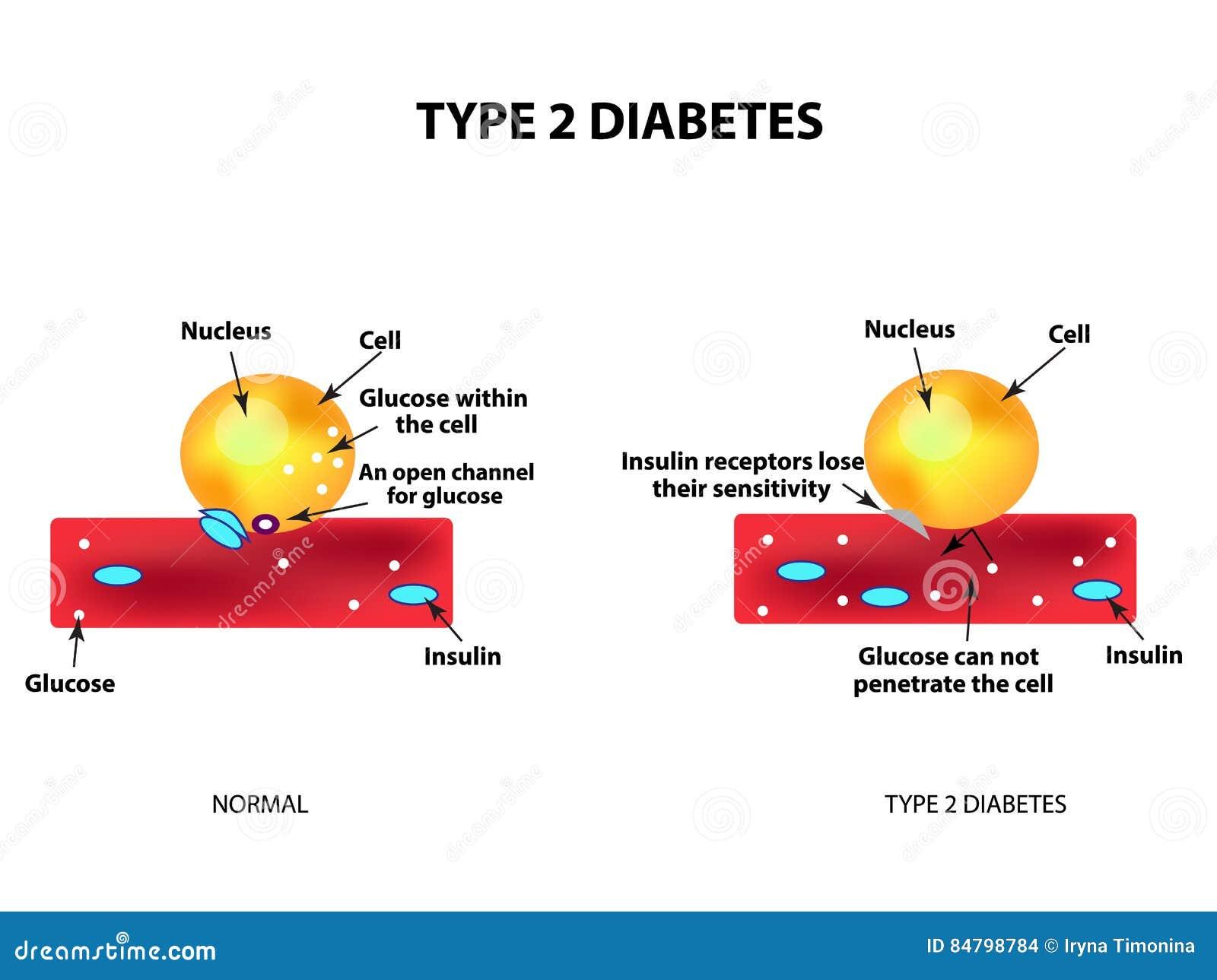 modelo de diabetes tipo insulina glucosa