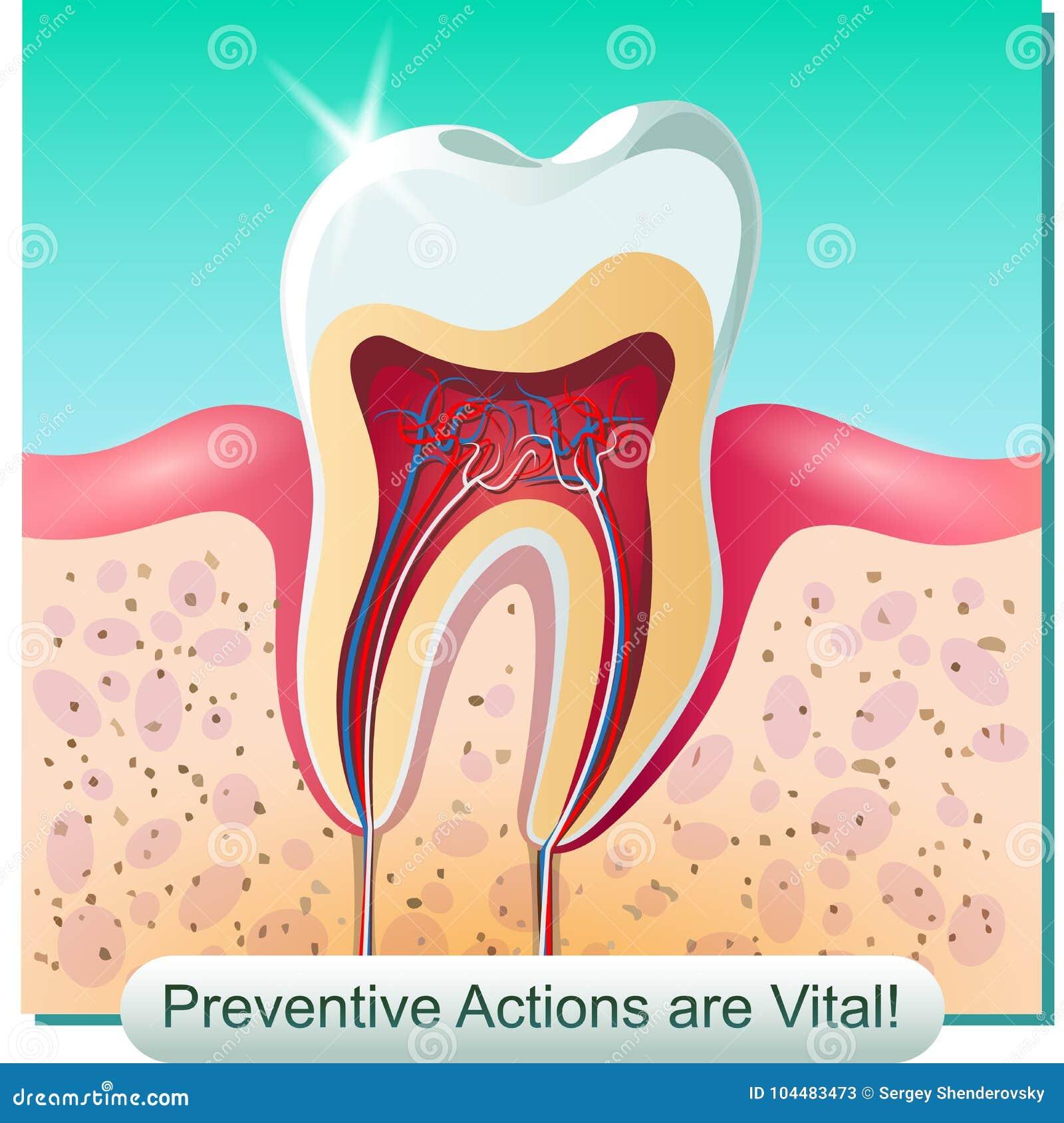 La anatomía dental ilustración del vector. Ilustración de goma ...
