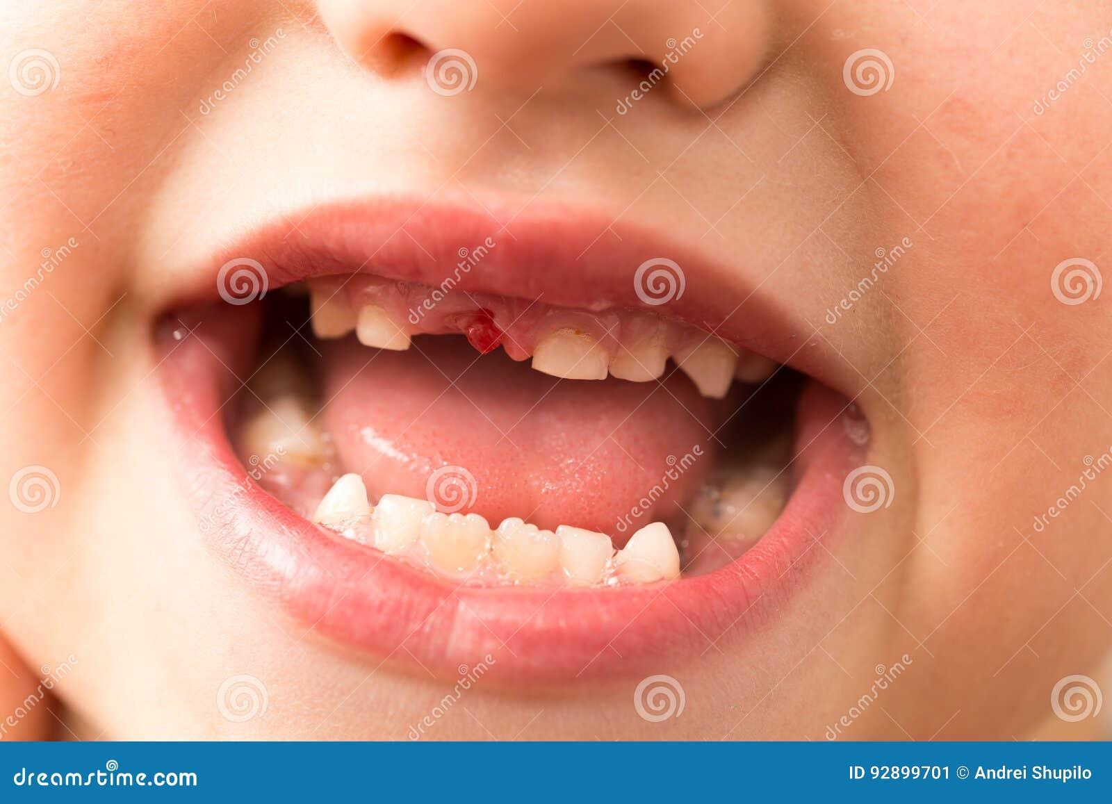La bocca di un ragazzo senza un dente