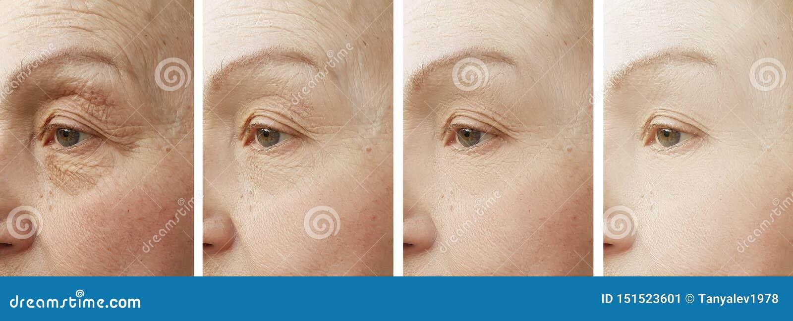 La cara de la mujer arruga al cosmetólogo paciente de la diferencia de la corrección antes y después del rejuvenecimiento del tra