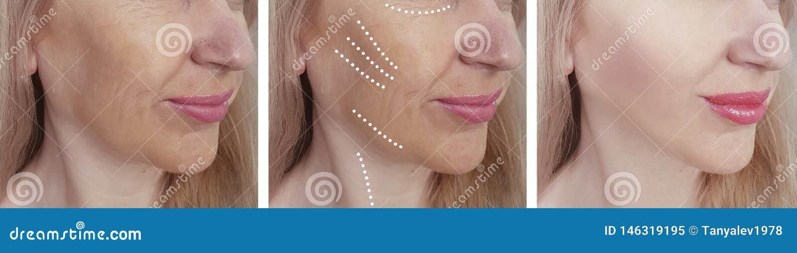 La cara de la mujer arruga antes despu?s de la correcci?n de hidrataci?n de hidrataci?n del biorevitalization del tratamiento del