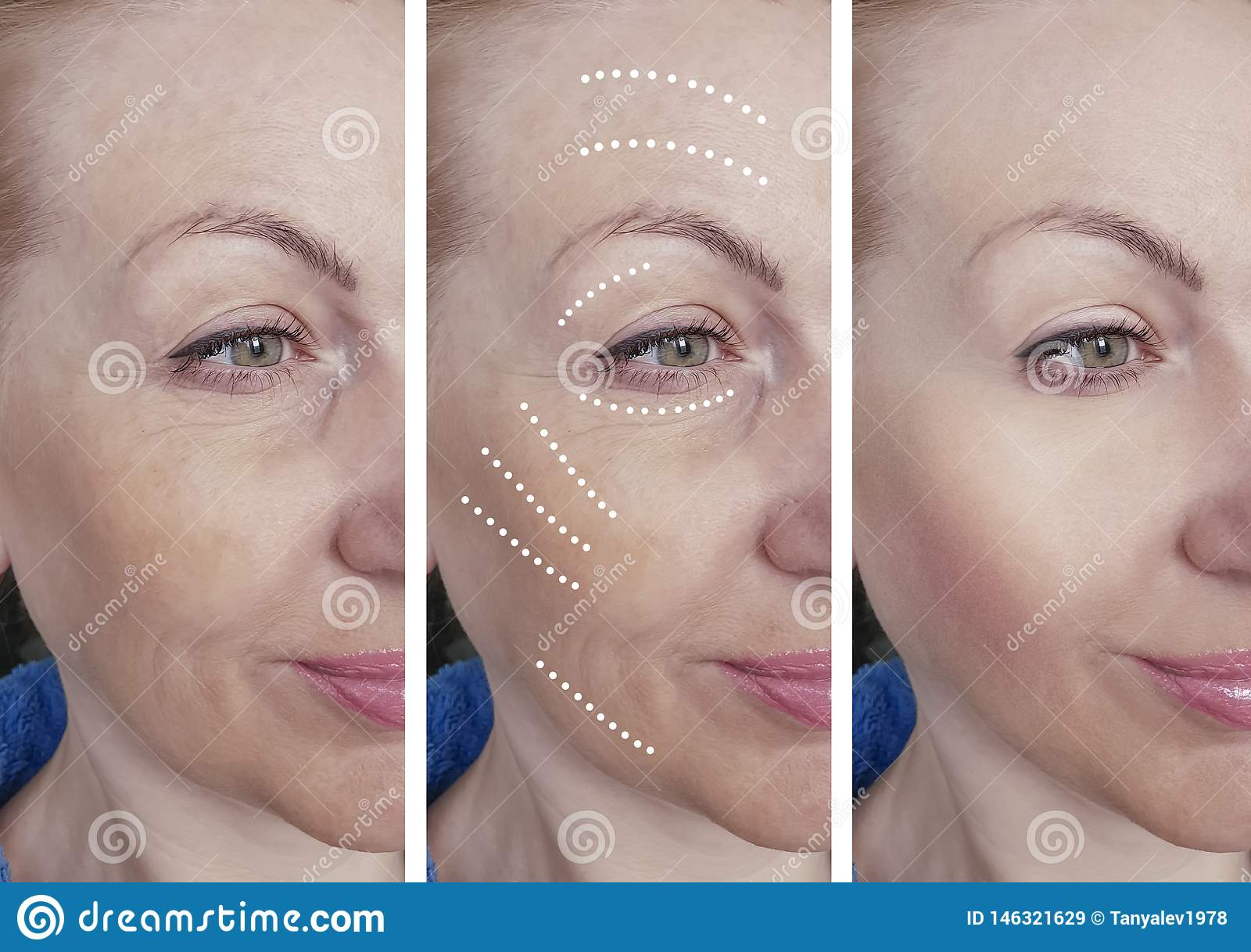 La cara de la mujer arruga antes despu?s de los procedimientos de hidrataci?n de hidrataci?n de la correcci?n del biorevitalizati