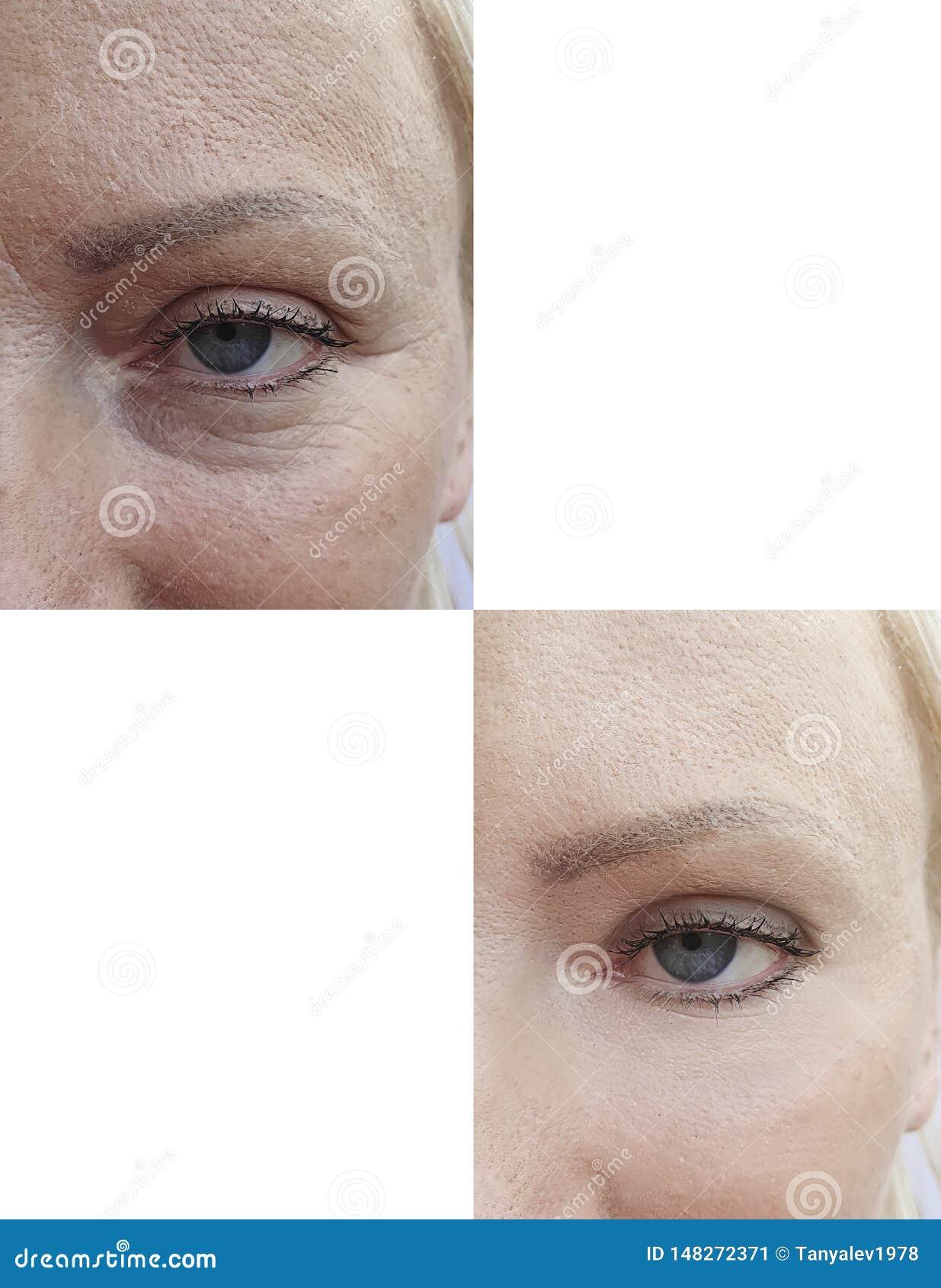 La cara de la piel de la mujer arruga la tensi?n pl?stica del efecto de la cosmetolog?a del collage que levanta antes despu?s de