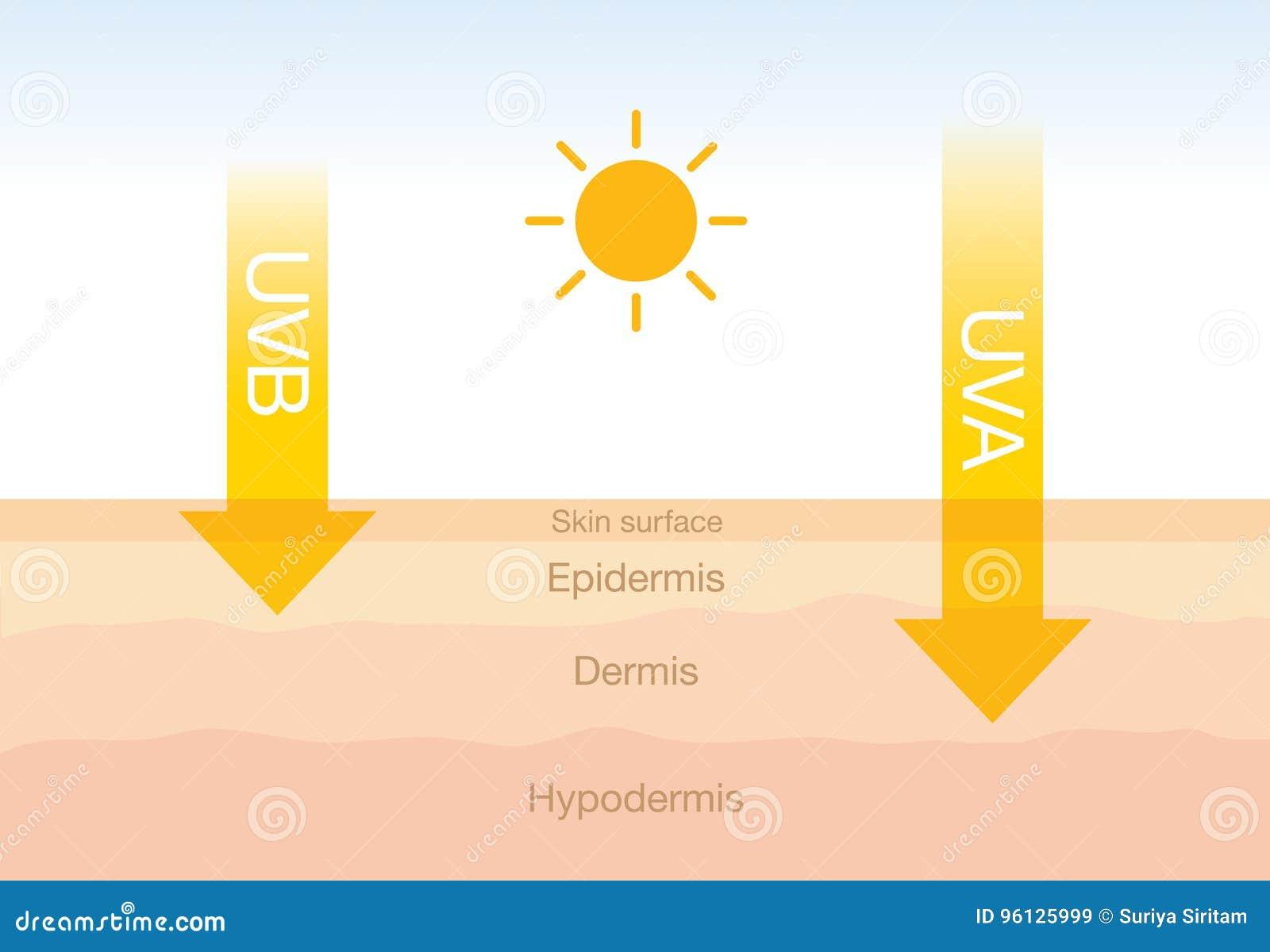 La diferencia de la radiación 2 mecanografía adentro luz del sol con la piel