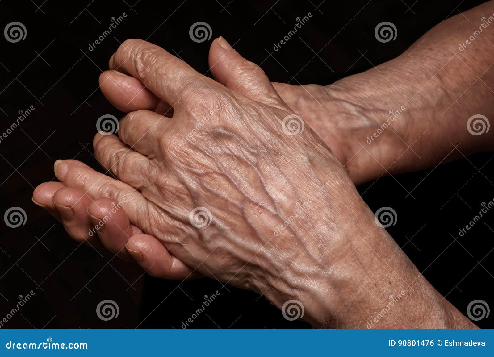 La donna senior piegata ha corrugato le mani vicino su La vecchiaia, invecchia proble