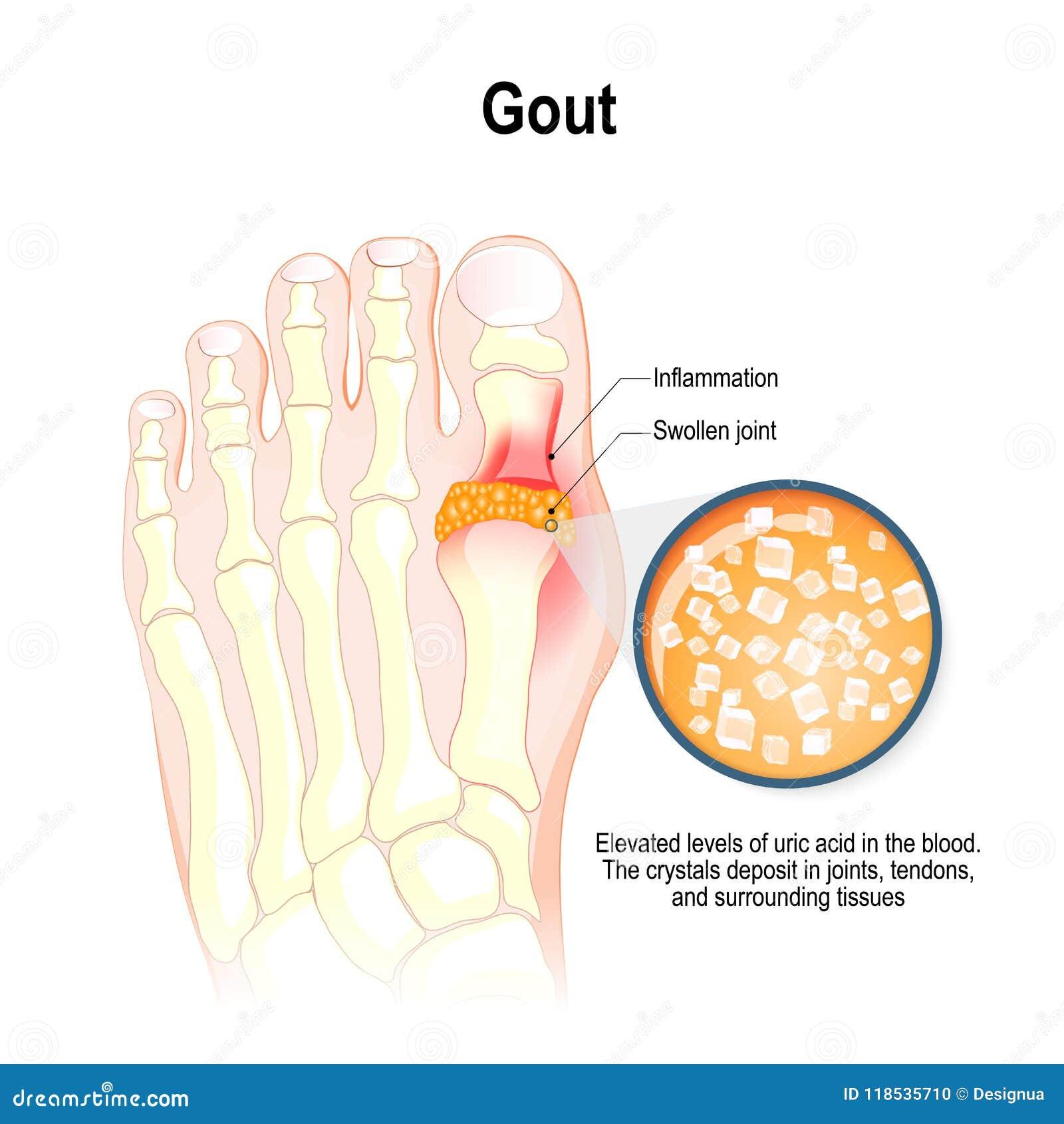 La goutte est une forme d arthrite inflammatoire