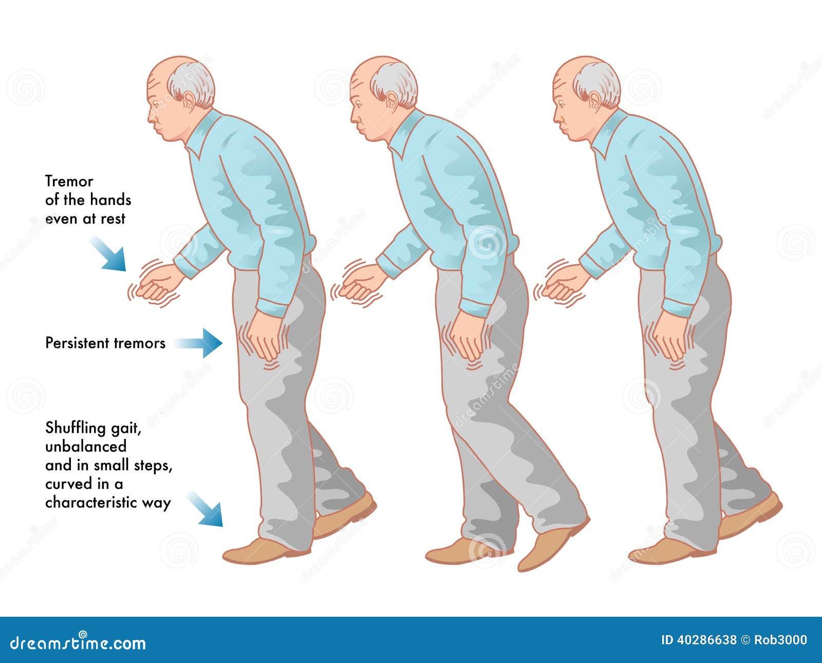 La maladie de Parkinsons
