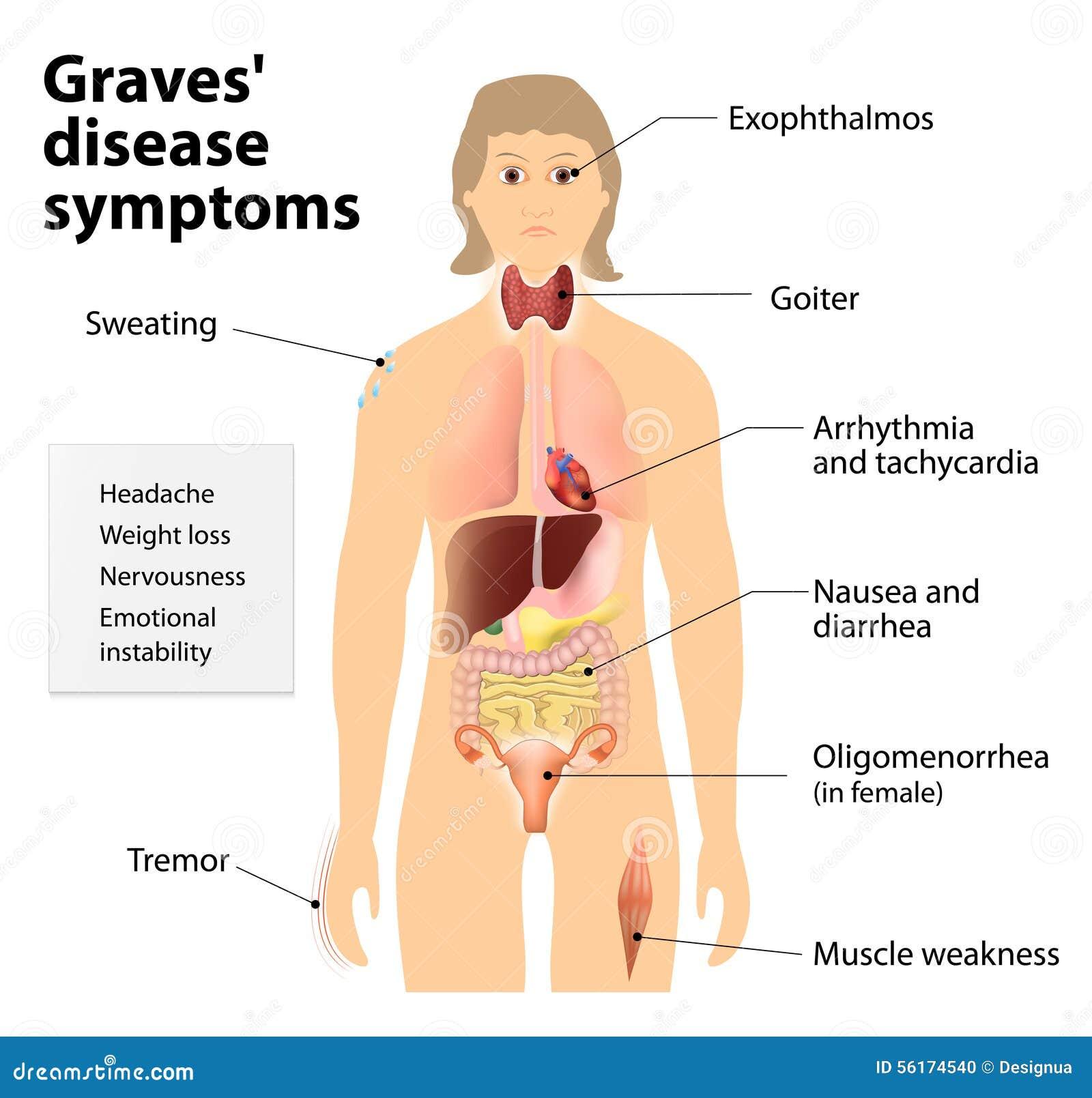 symptomes maladie de basedow