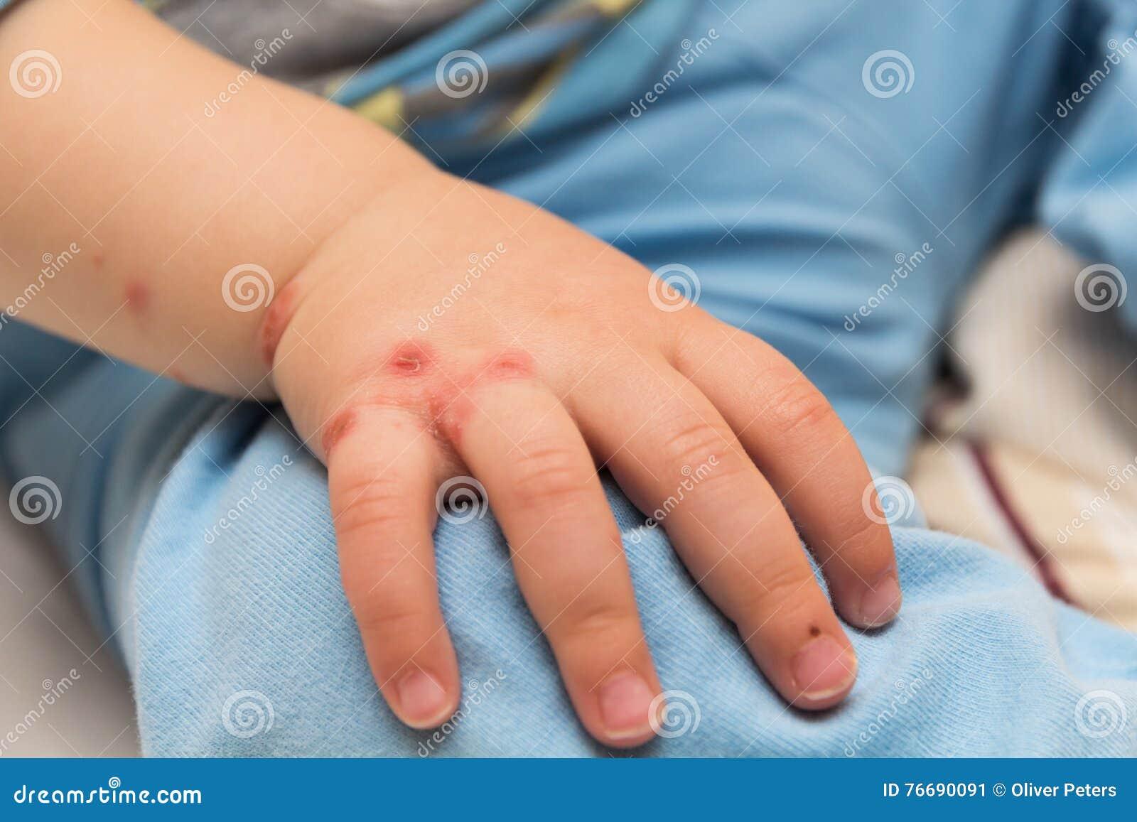enfermedades de la piel en niños imagenes