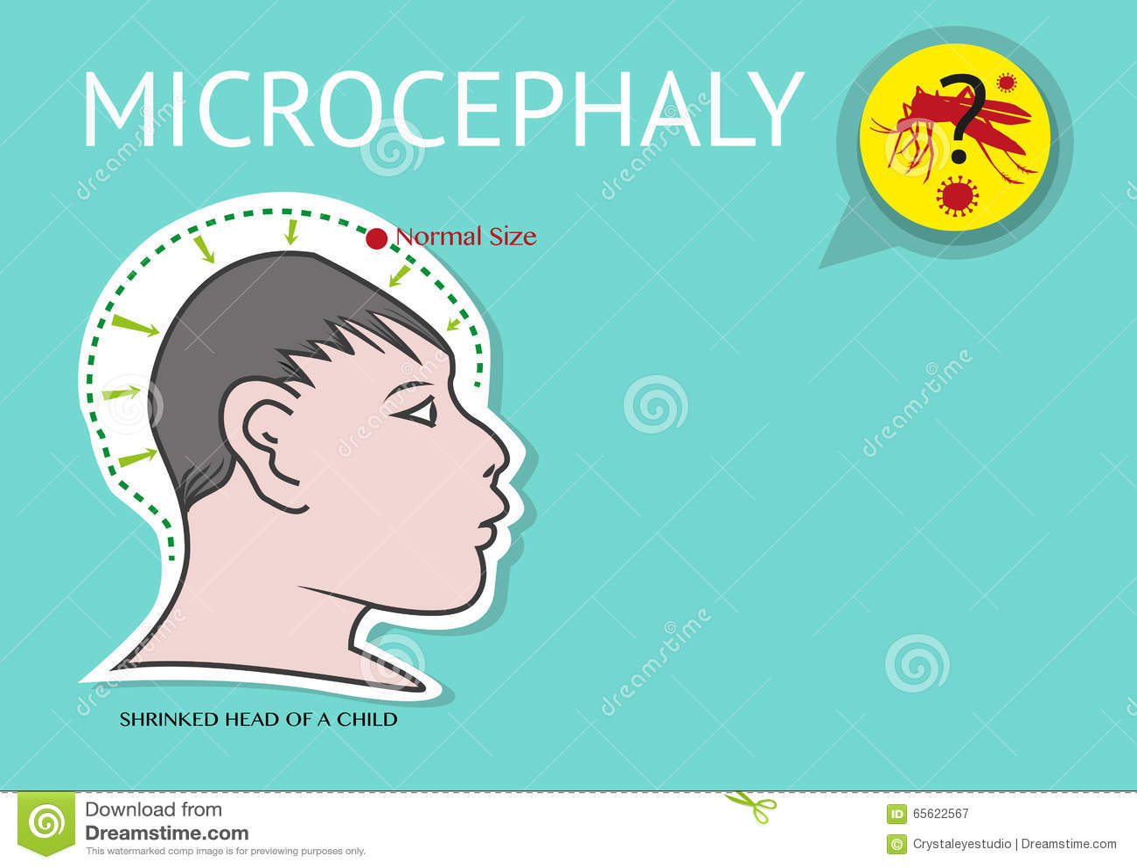 La Microcéphalie Ou La Petite Dimension Anormale De La Tête A Lié Au ...