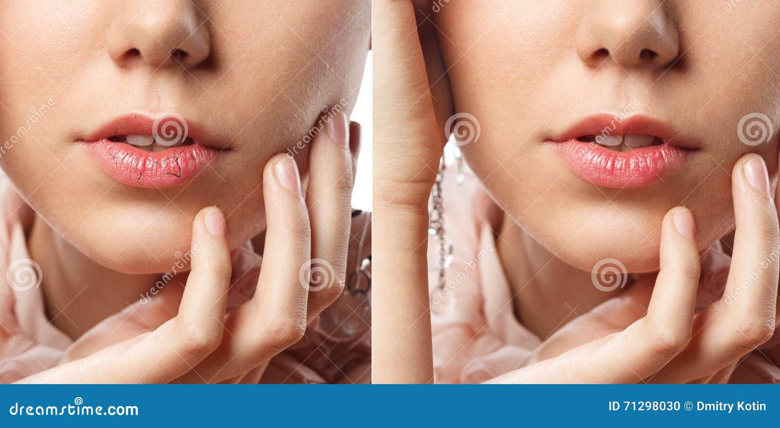 La mujer joven ha agrietado los labios