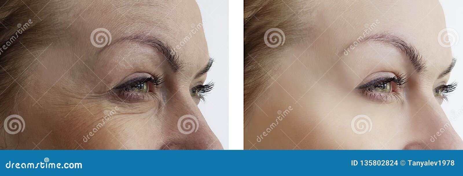 La ragazza corruga l occhio di rimozione prima e dopo i trattamenti di sollevamento di terapia