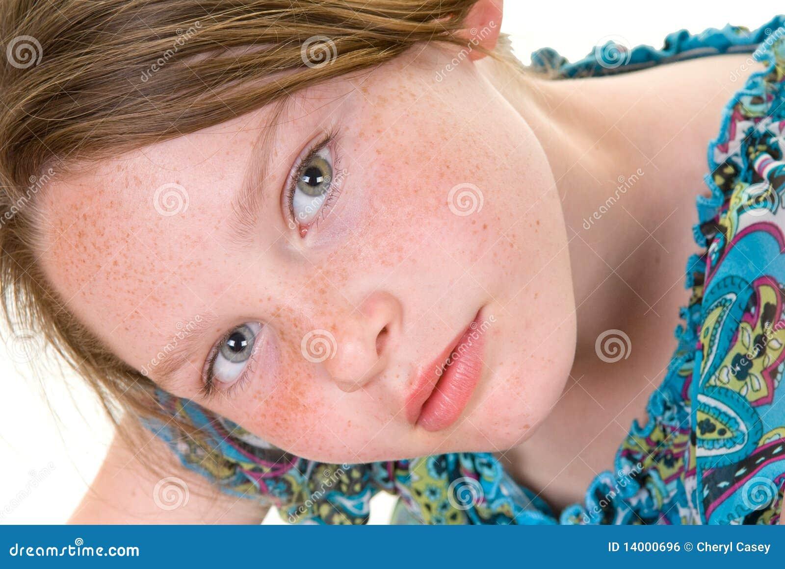 Léloignement des taches de pigment sur la personne à belgorode