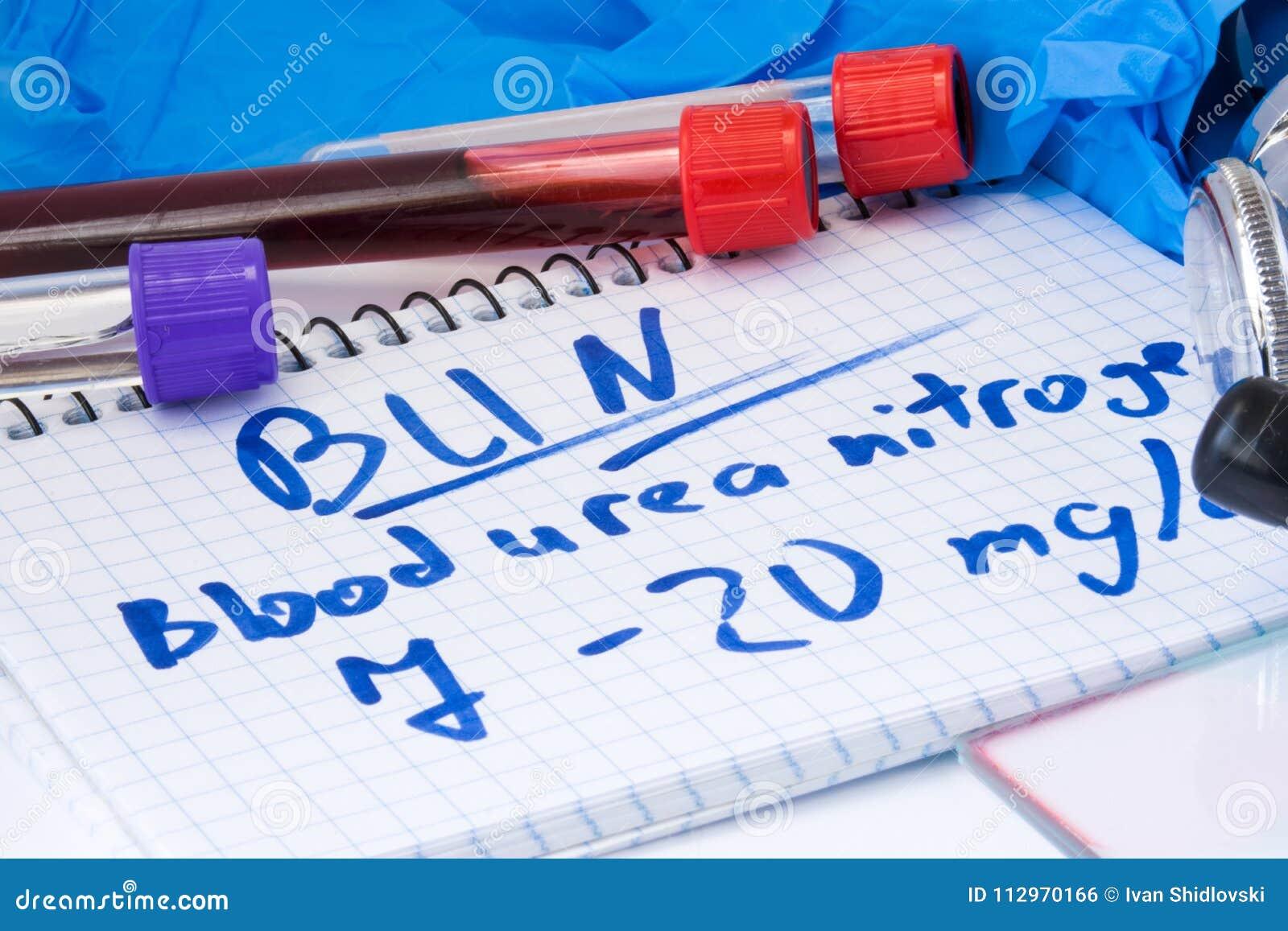 Laboratorio Del Nitrógeno Del BOLLO O De Urea De Sangre En Tubos De ...
