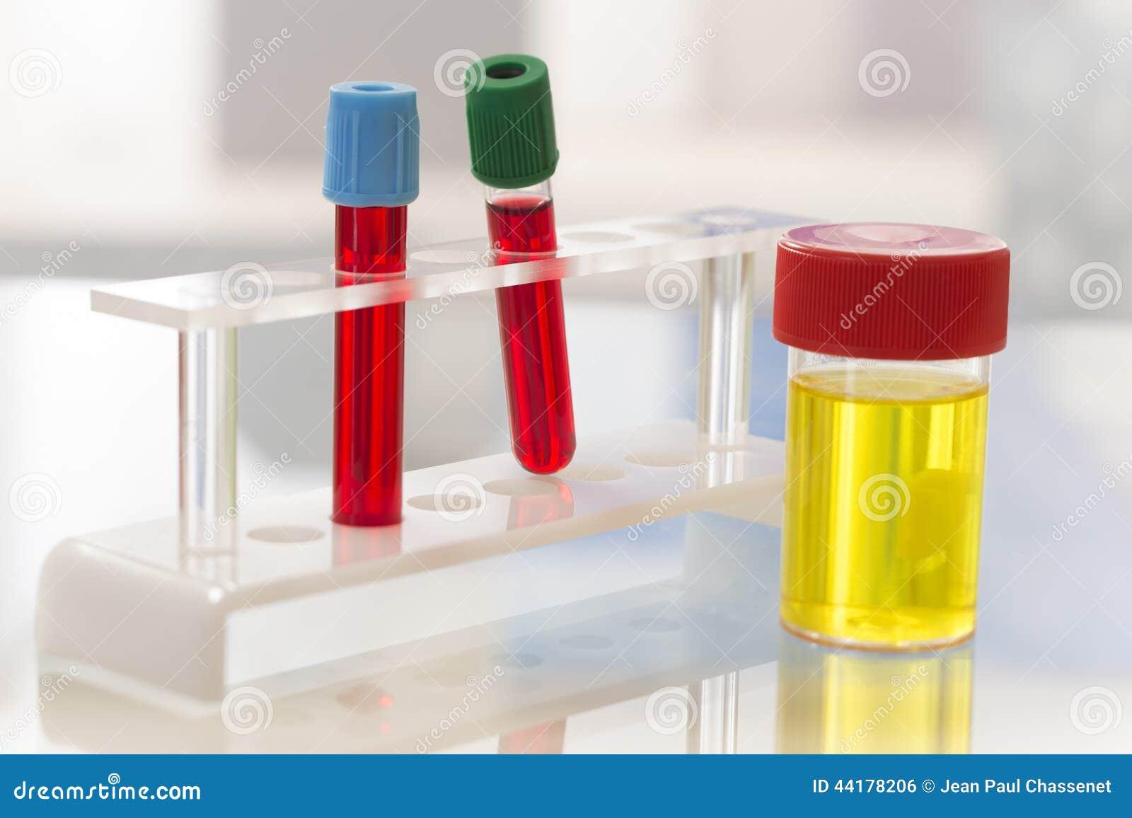 laboratorio muestra de orina y análisis de sangre estéril foto de