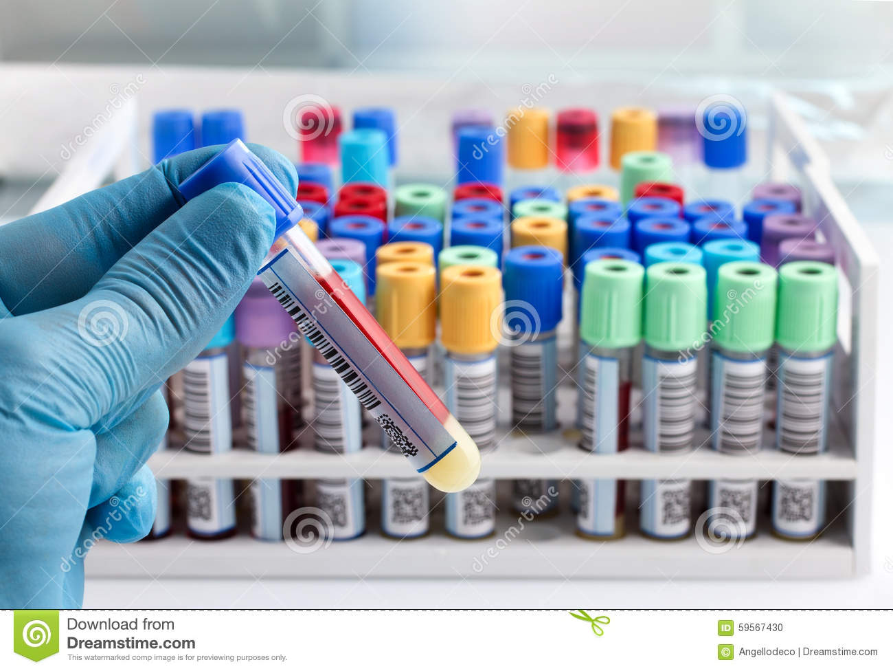 Hand doctor holding a blood tube test with bar code for analysis laboratory technician holding a blood tube test labeled with bar stock photo nvjuhfo Image collections