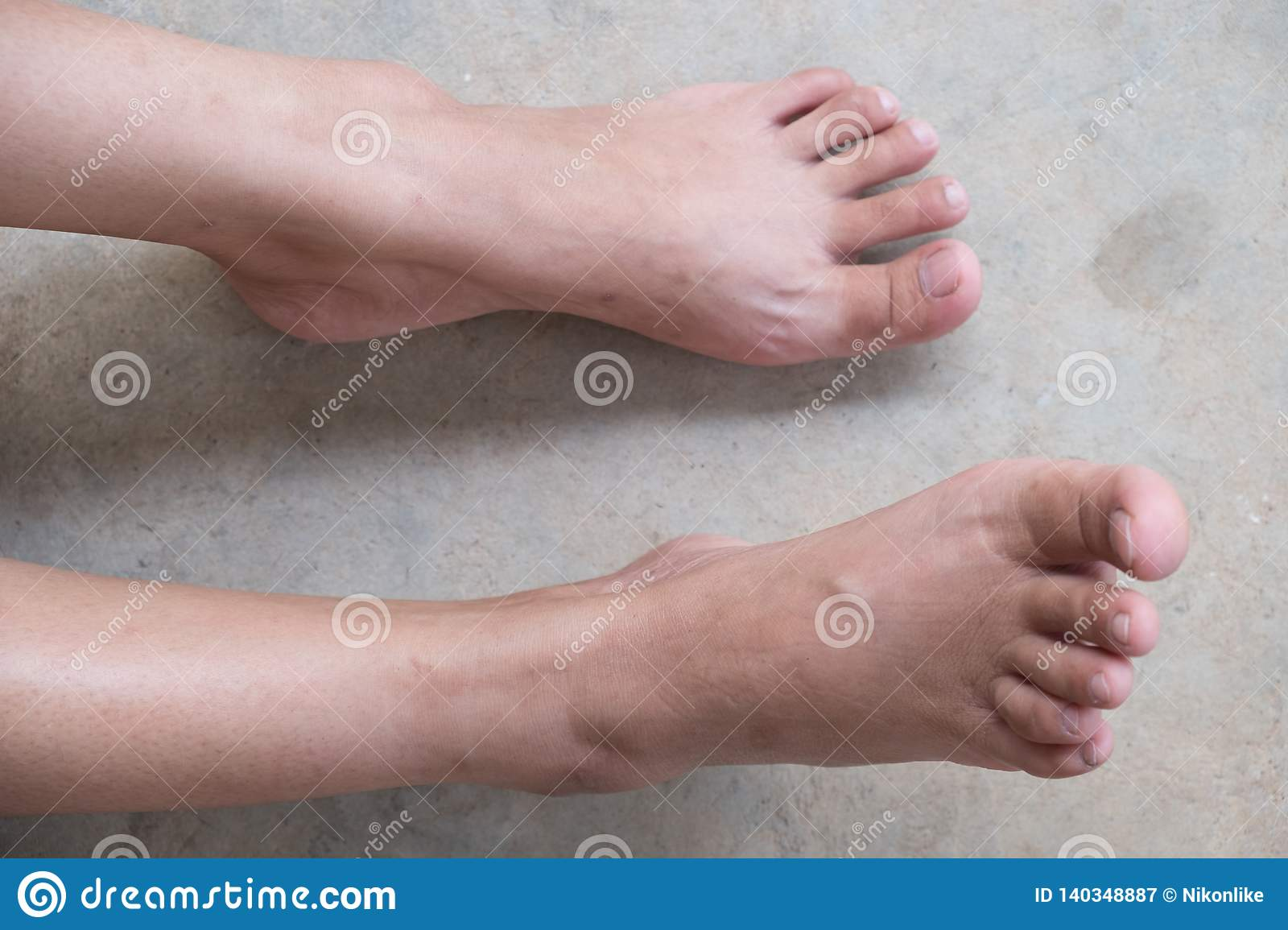 best deals on pick up uk store Lap Feet Or Flat Foot stock image. Image of itchy, painful ...