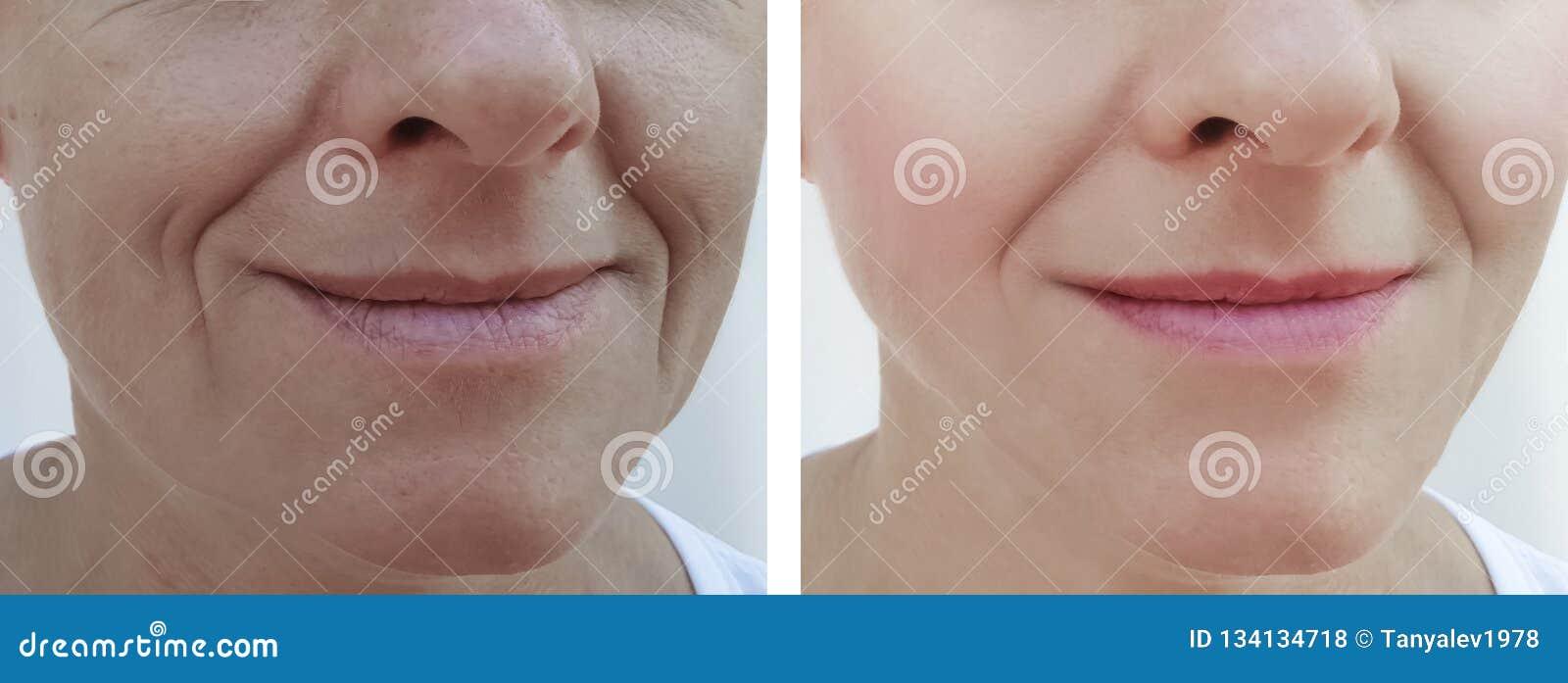 Las arrugas de la mujer hacen frente al paciente de la diferencia del retiro antes y después de cosmetología de los tratamientos