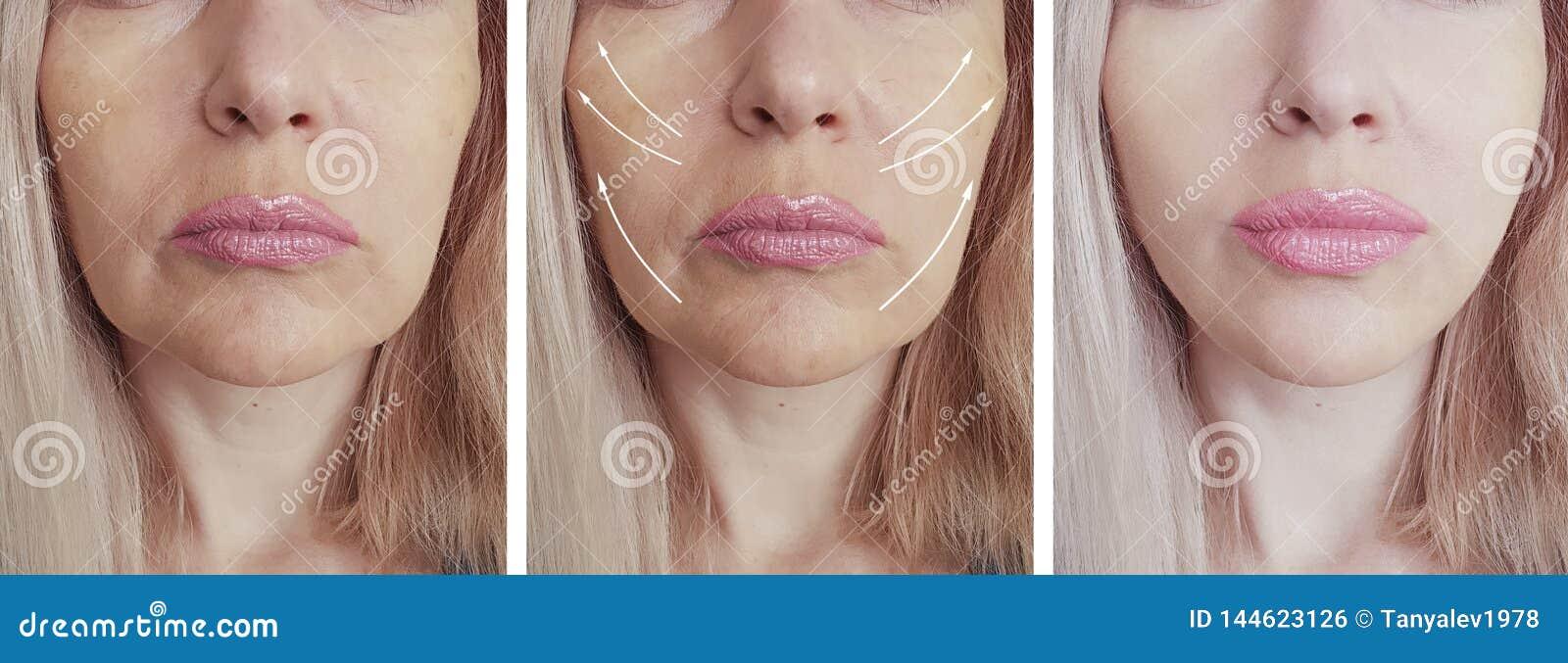 Las arrugas de la mujer hacen frente a la elevación de la flecha del cosmetólogo antes y después del tratamiento paciente de l