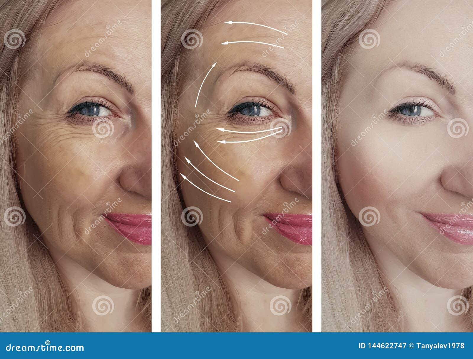 Las arrugas de la mujer hacen frente a la regeneración de la elevación de la flecha del cosmetólogo antes y después del trata