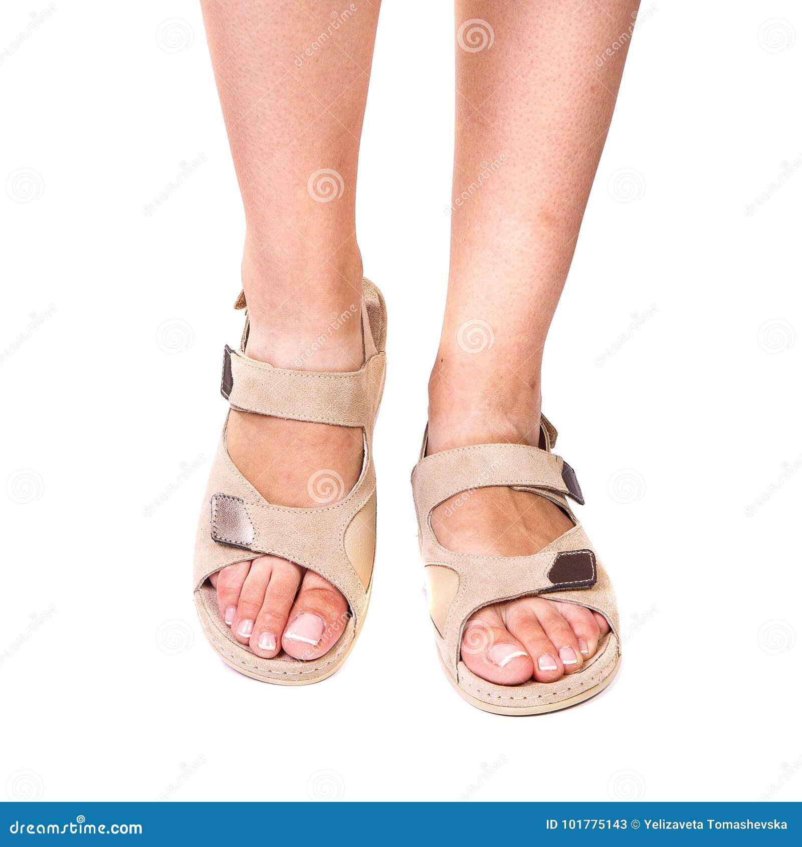 Las piernas de los zapatos ortopédicos de una muchacha en blanco aislaron el fondo