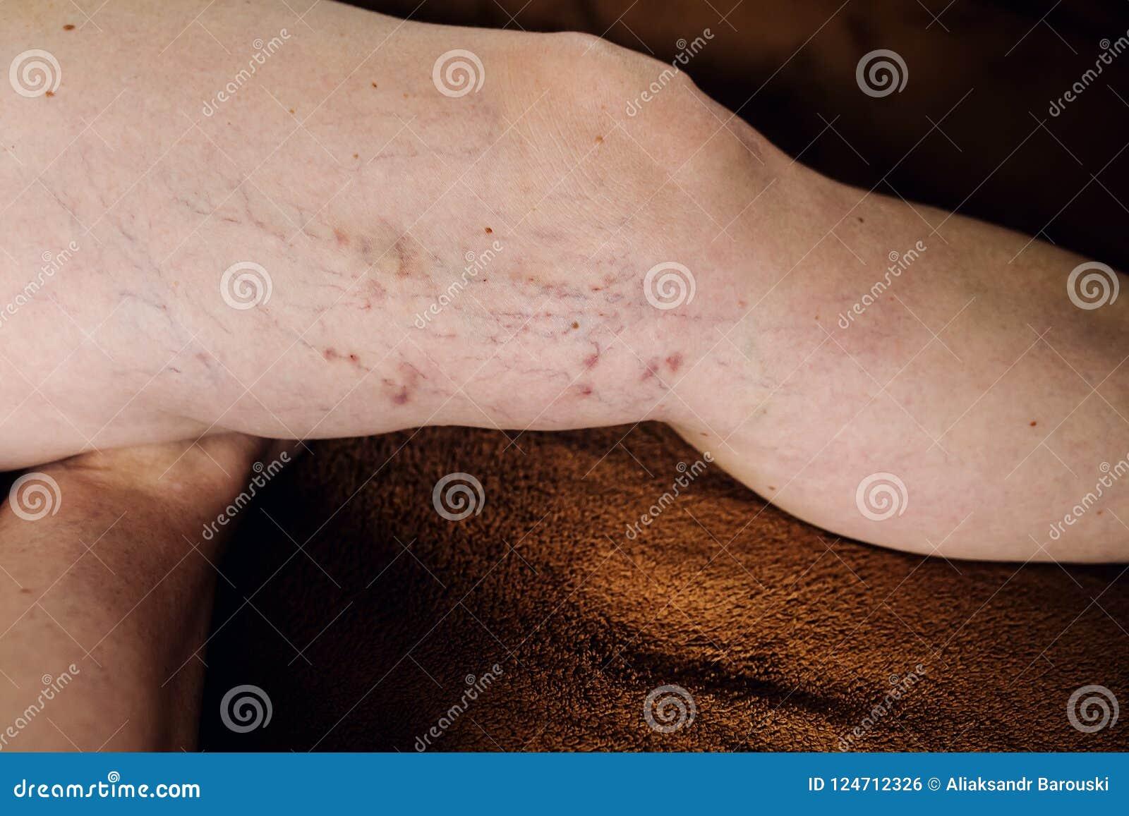 yoga para las venas varicosas de la pierna