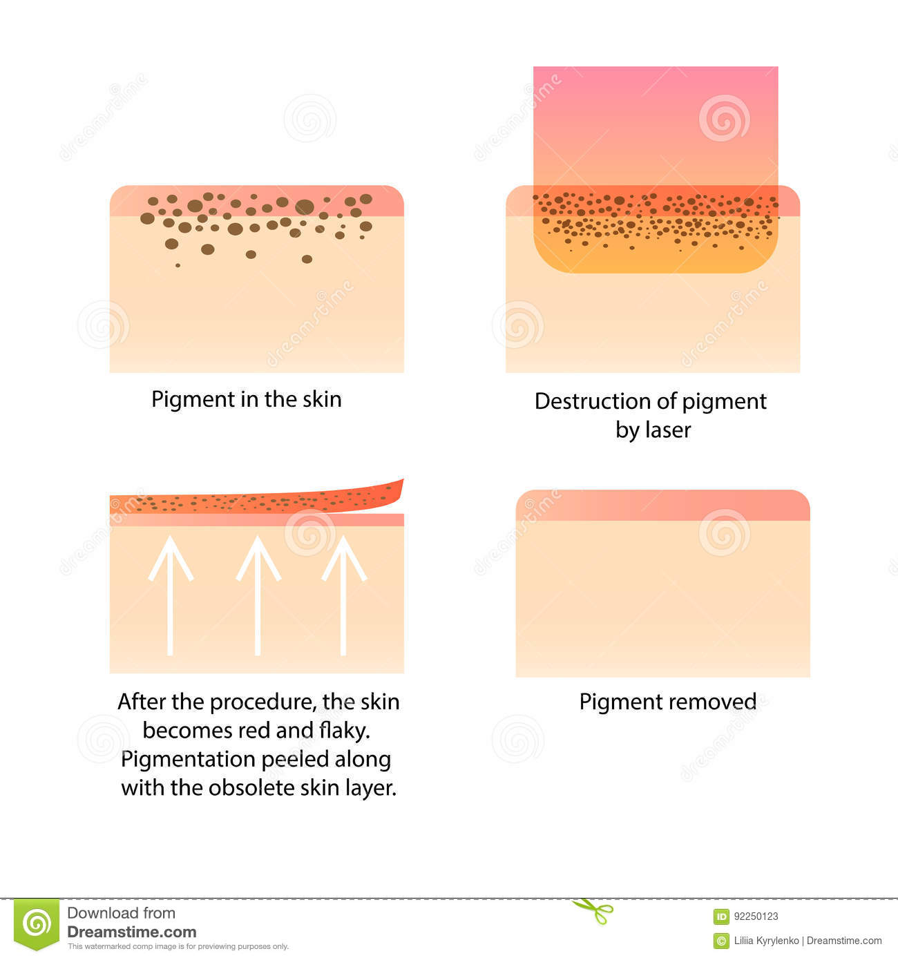 Laser cosmetology. Procedure for removing tattoo, freckles, old dark spots pigment