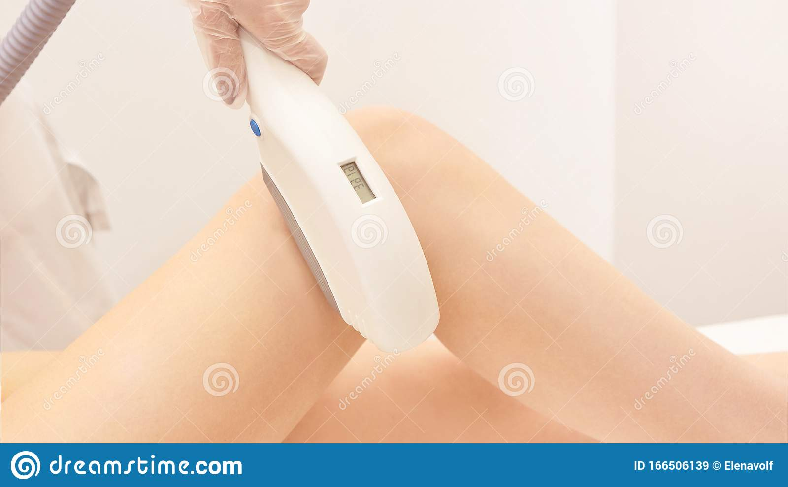 Laser Elos Medical Device  Remove Unwanted Hair And Asteriks  Cosmetology Spa Procedure At Salon