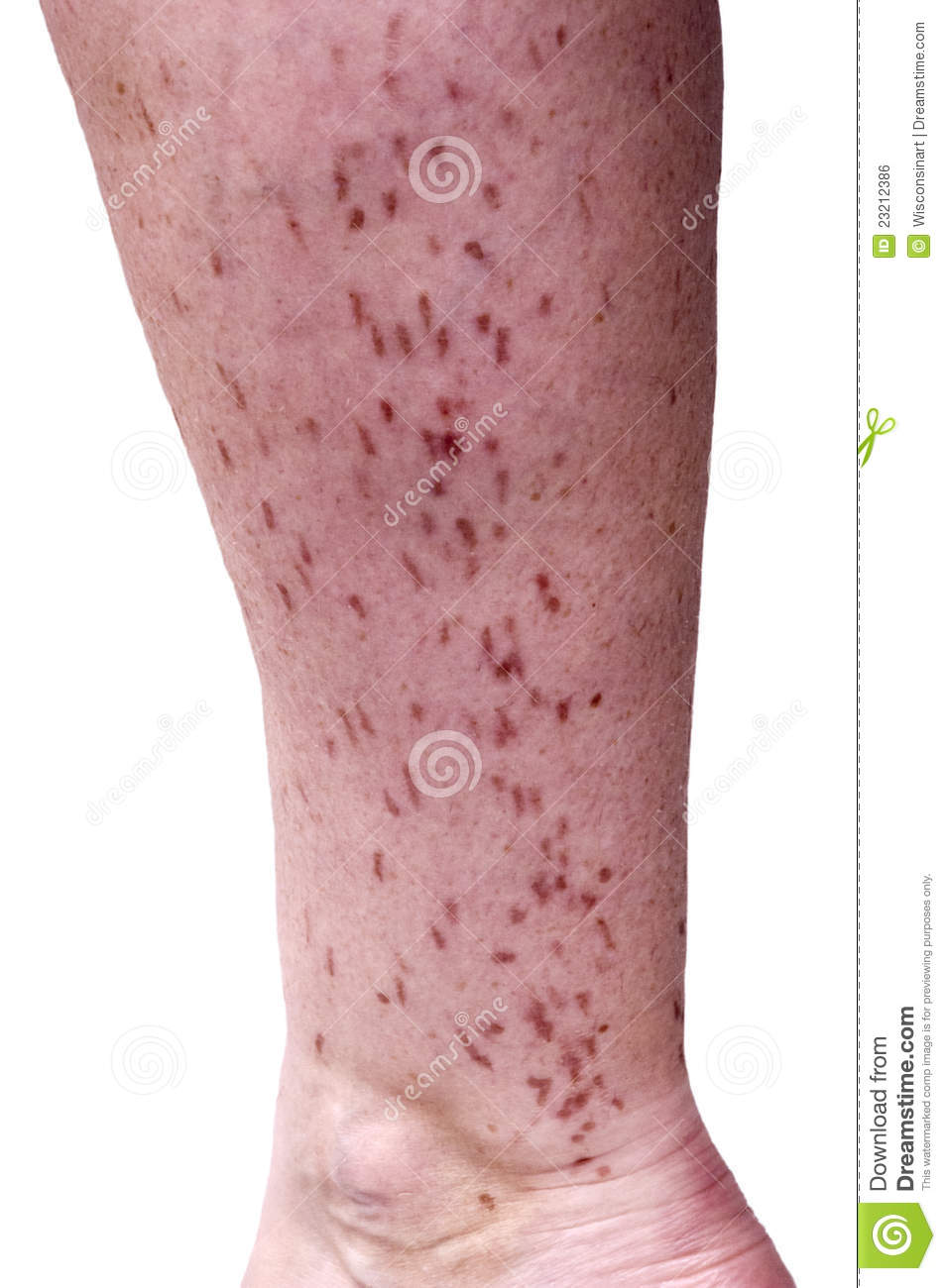Laser Hair Removal Burn Skin Scarred Blister Stock Photo