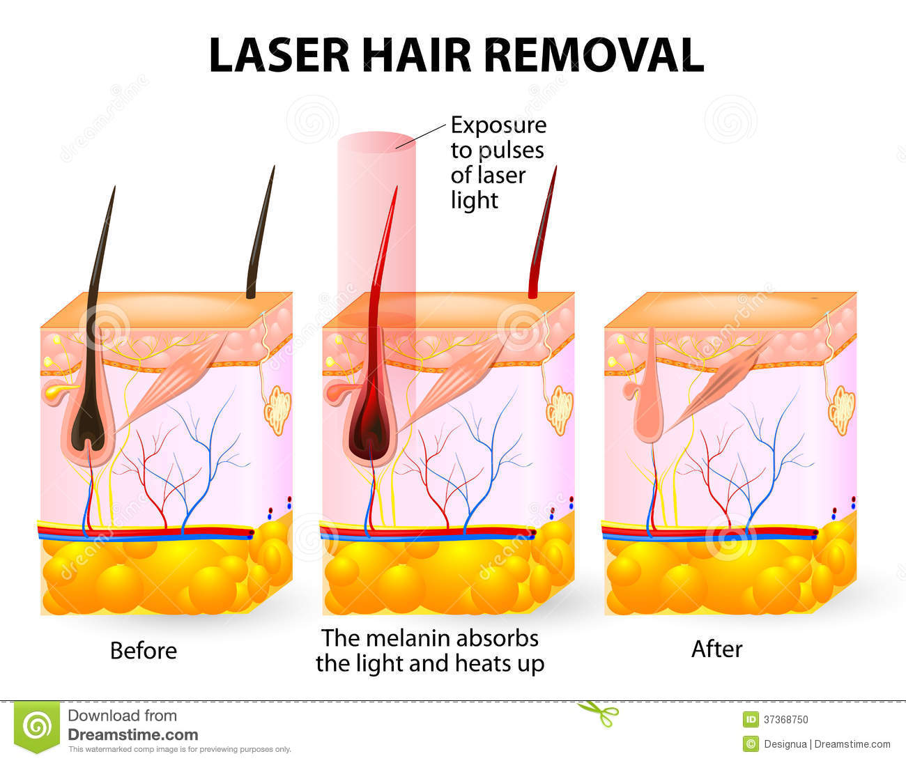 Laser Hair Removal Vector Diagram Stock Vector Illustration Of
