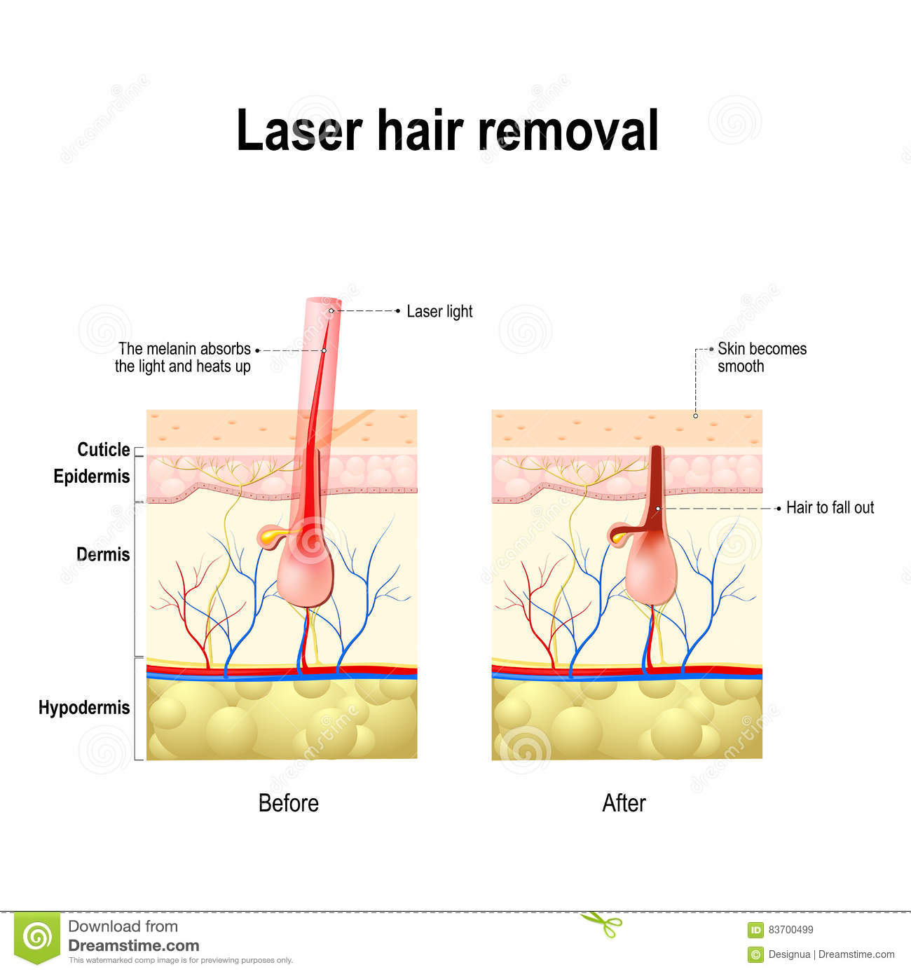 a beam of light that is absorbed by the pigment in hair  this causes  damage to the hair follicle without hurting the skin tissue  laser treatment