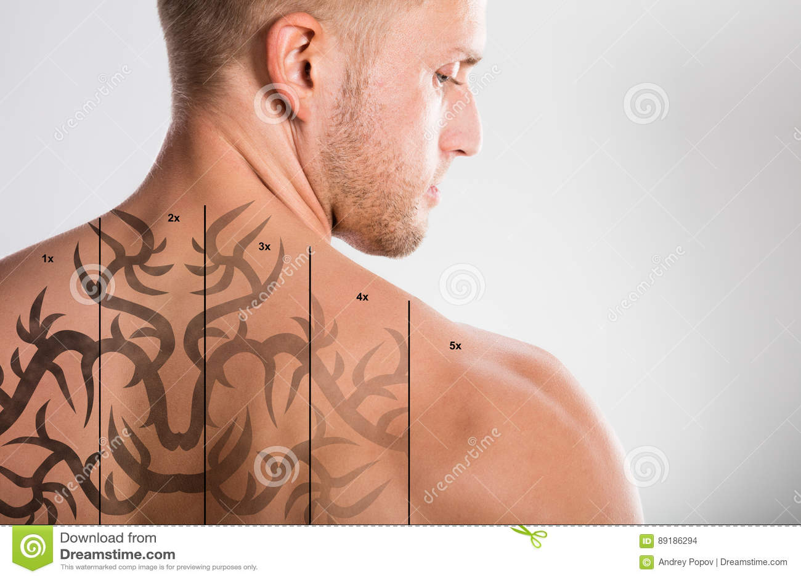 Laser-tatueringborttagning på baksida för man` s