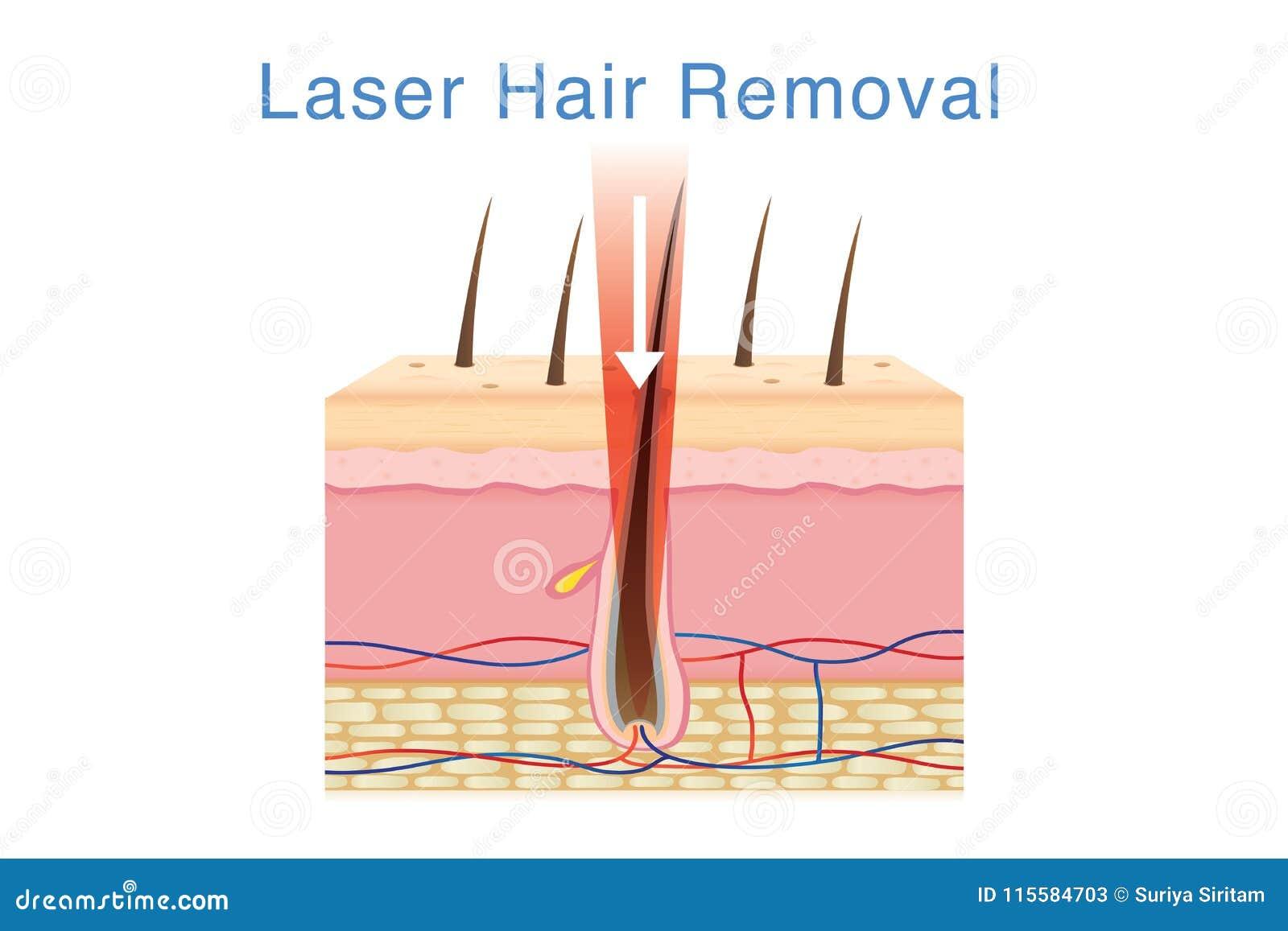 Laserlicht Für Haarabbau Auf Hautschicht Vektor Abbildung ...