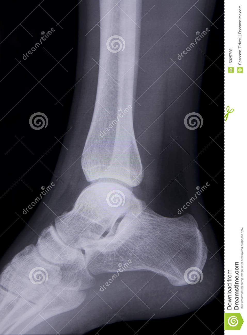 Lateral Ankle X Ray Stock Photo Image Of Skeletal Healthcare