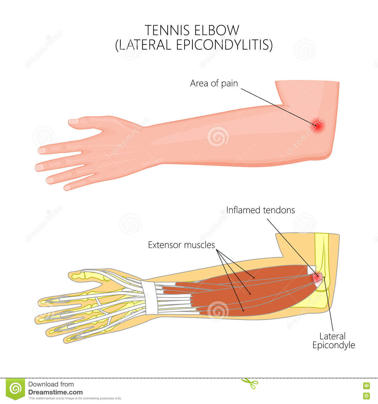 Tennis Elbow Diagram Labeled - Product Wiring Diagrams •