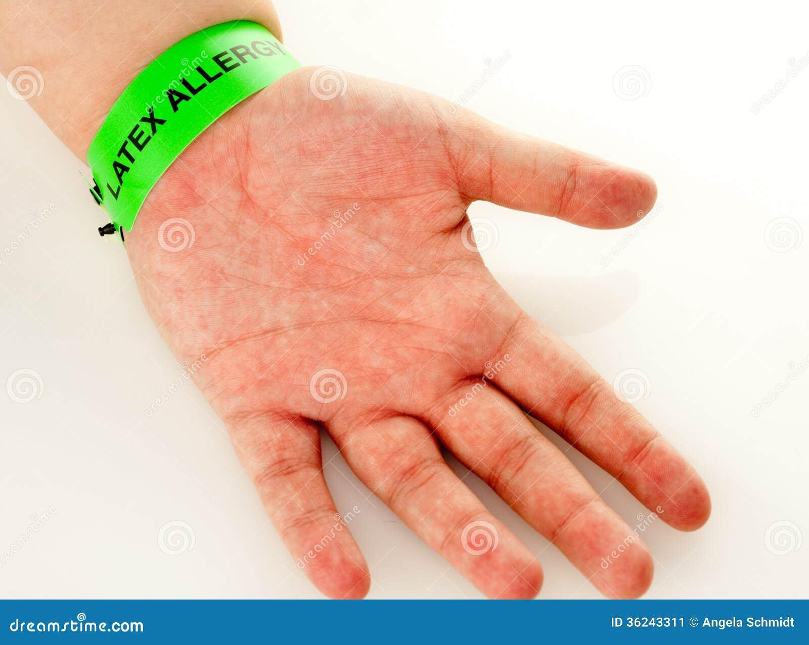 Latex Allergie Hautausschlag