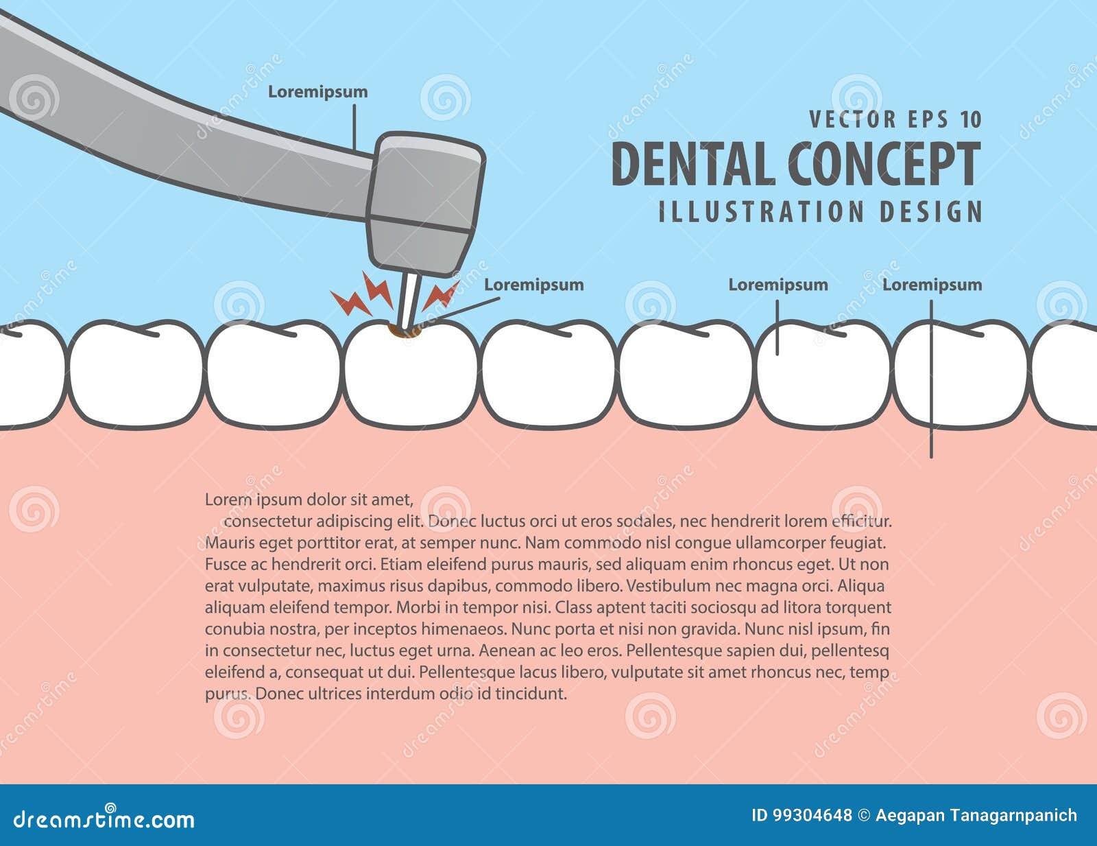Dental Caries Book