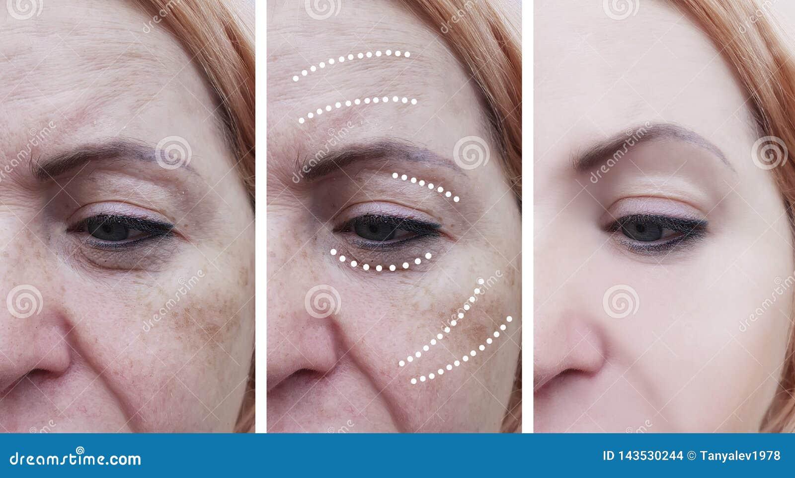 Le grinze della donna prima e dopo il sollevamento delle procedure mature del trattamento sollevano i trattamenti di effetto di c